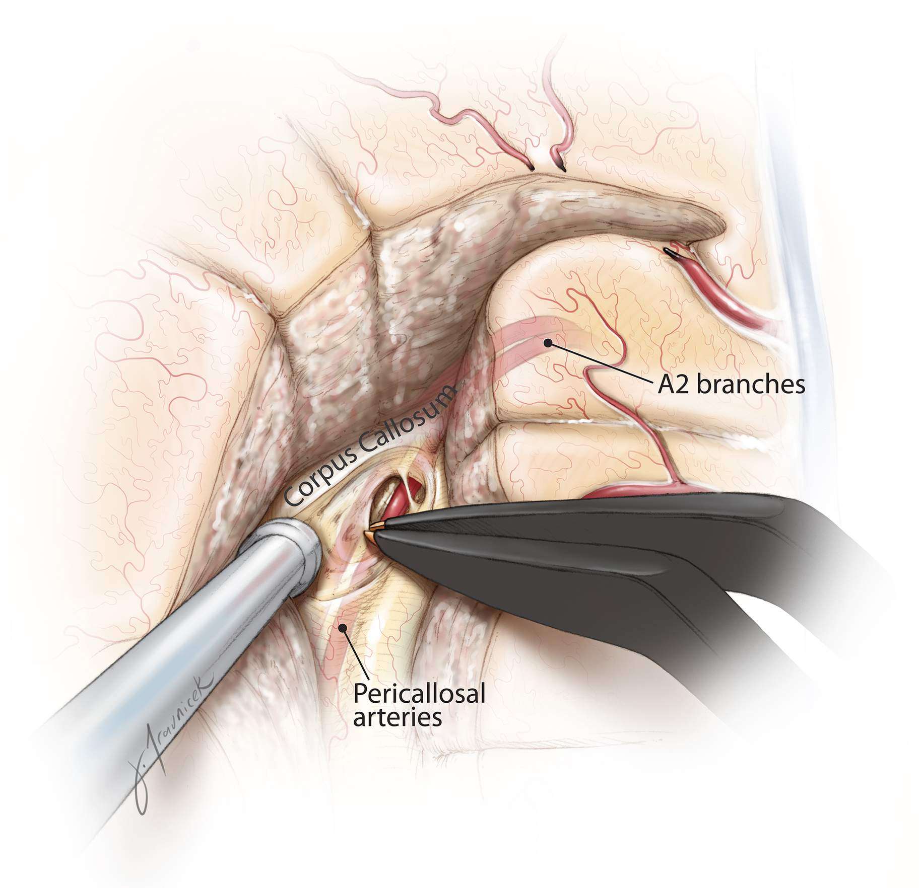 Figure 11: The junction of the septum pellucidum and the genu of corpus callosum serves as a landmark for starting the callosotomy, which is performed 4 to 5 mm from the midline due to the working angle provided by the transcortical transventricular access. During this step, neuronavigation can help confirm the correct plane of disconnection. I have not used ultrasound guidance because of the narrow transventricular operative corridor. The dissection is carried through the corpus callosum until the pericallosal arteries are identified within the callosal sulcus, just inferior to the cingulate gyrus. I find it helpful to place a small incision in the coronal plane to identify the artery, and then I continue with an incision in the parasagittal plane to start the callosotomy.