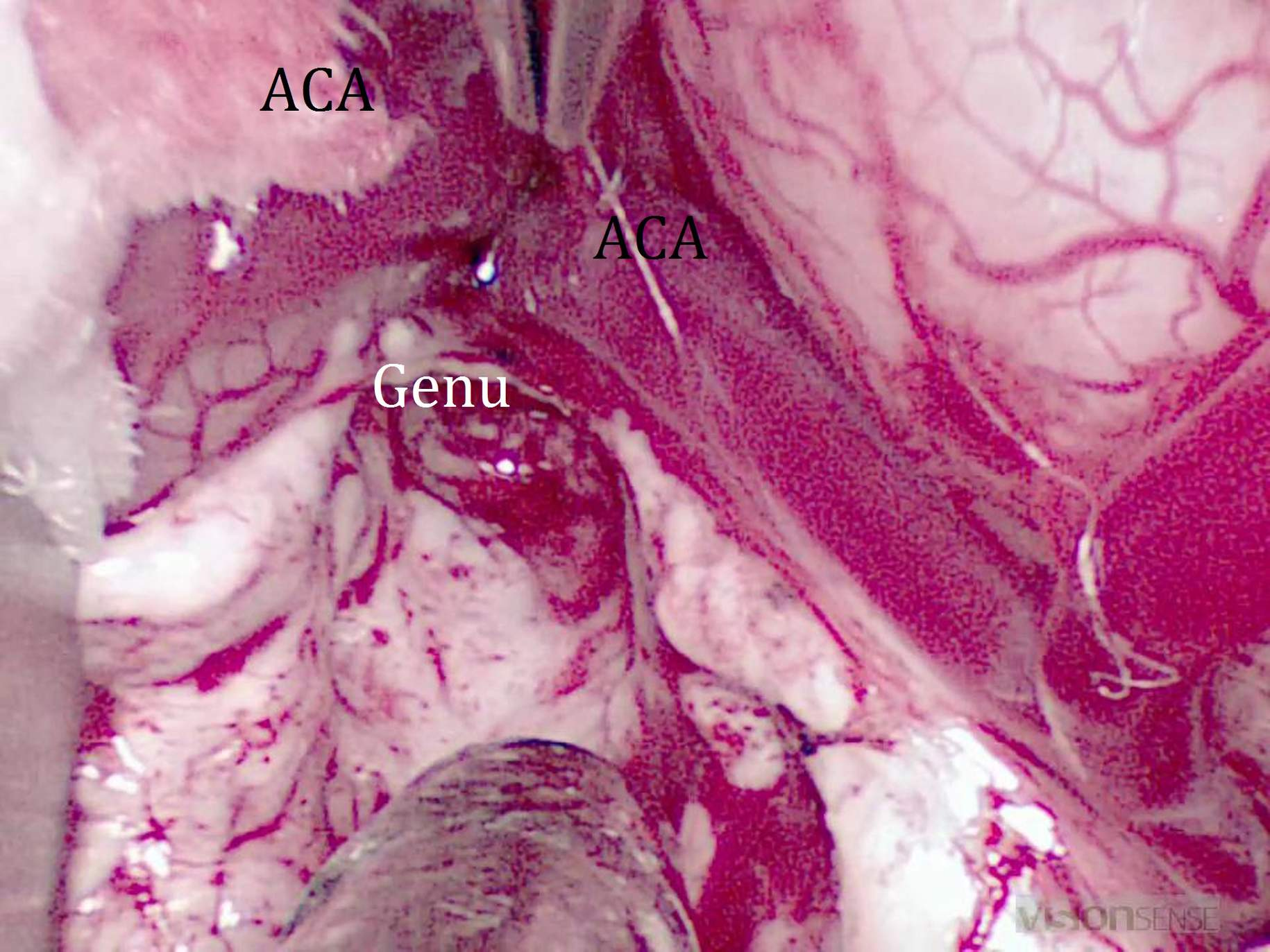 Figure 8: The genu of the corpus callosum follows inferior to the curvature of the anterior cerebral arteries (ACA,) which serve as good anatomical landmarks.