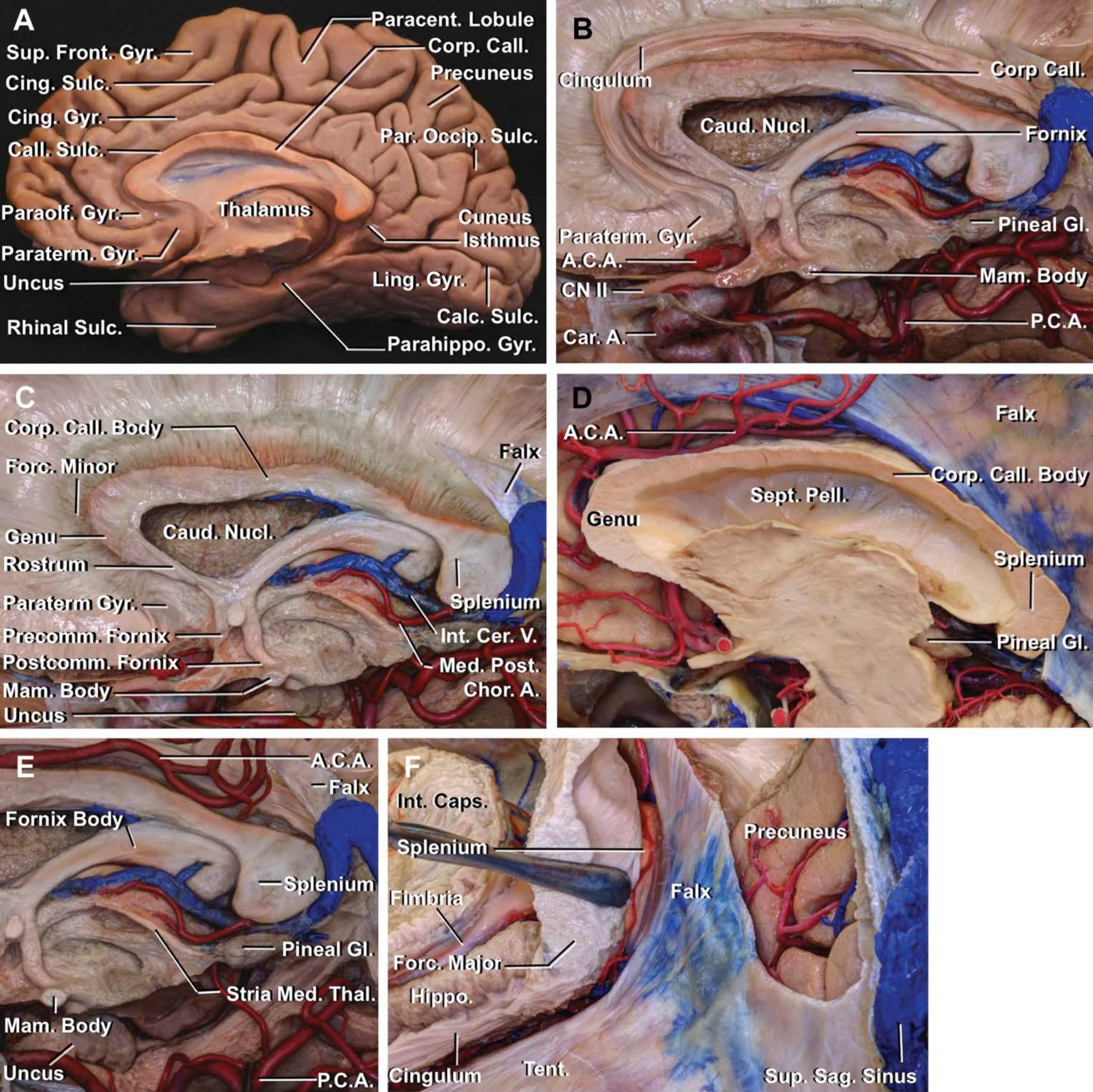 Figure 1: A transected corpus callosum and the adjacent cerebrovasculature. The segments of the corpus callosum are annotated. A. C. A., anterior cerebral artery; Calc. Sulc., calcarine sulcus; Call. Sulc., callosal sulcus; Car. A., carotid artery; Caud. Nucl., caudate nucleus; Chor. A., choroidal artery; Cing. Gyr., cingulate gyrus; Cing. Sulc., cingulate sulcus; CN, cranial nerve; Corp. Call., corpus callosum; Forc. Major., forcepsmajor; Forc. Minor, forceps minor; Hippo., hippocampus; Int. Caps., internal capsule; Int. Cer. V., internal cerebral vein; Ling. Gyr., lingual gyrus; Mam. Body, mammillary body; Med. Post., medial posterior; Rhinal Sulc., rhinal sulcus; Par. Occip. Sulc., parieto-occipital sulcus; Paracent. Lobule, paracentral lobule; Paraolf. Gyr., parolfactory gyrus; Paraterm. Gyr., paraterminal gyrus; Parahippo. Gyr., parahippocampal gyrus; P. C. A., posterior cerebral artery; Pineal Gl., pineal gland; Precomm. Fornix, precommissural fornix; Postcomm. Fornix., postcommissural fornix; Sept. Pell., septum pellucidum; Stria Med. Thal., stria medullaris of thalamus; Sup. Front. Gyr, superior frontal gyrus; Sup. Sag. Sinus, superior sagittal sinus; Tent., tentorium. (Photos courtesy of AL Rhoton, Jr. 14 )