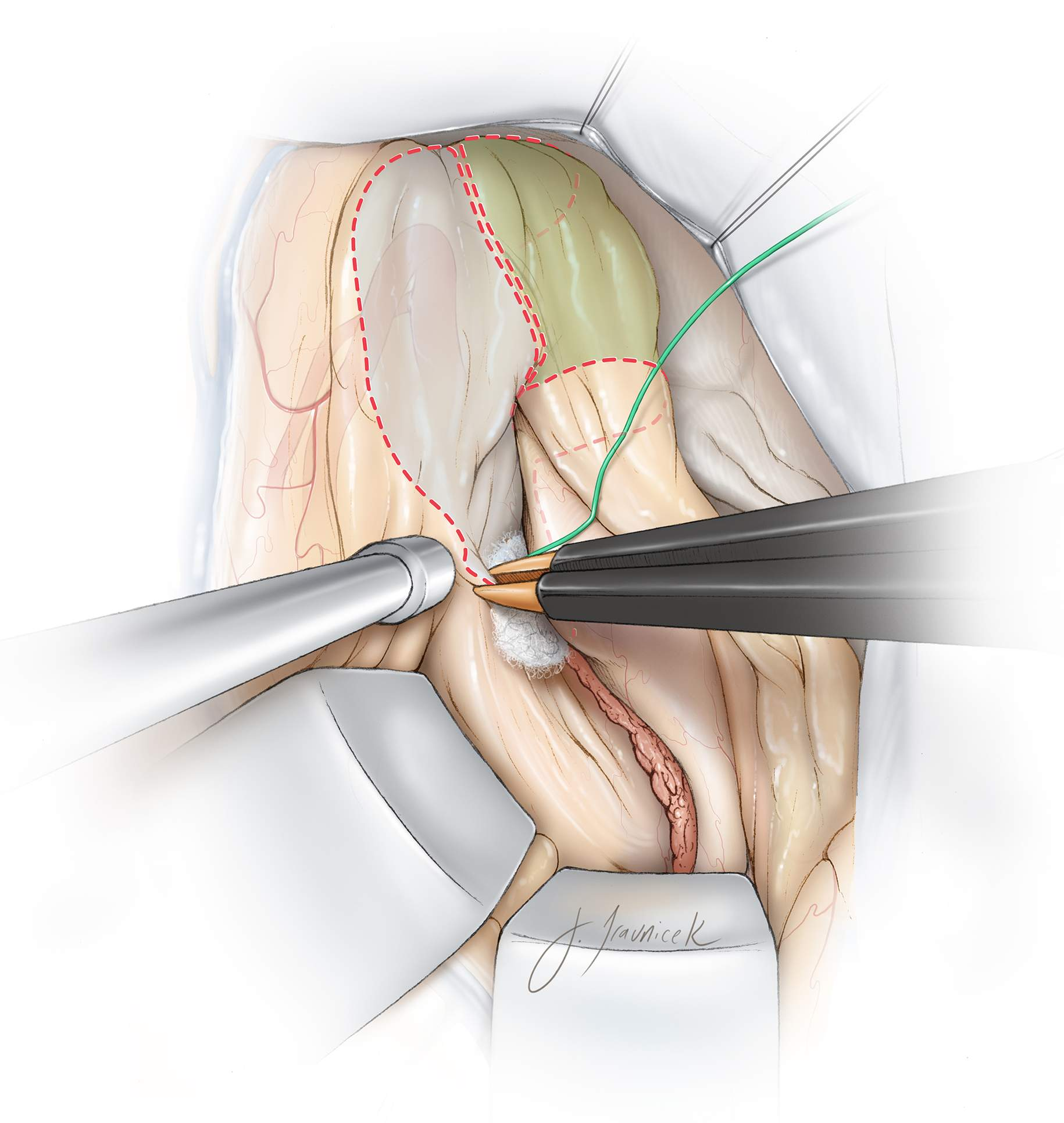Figure 17: The inferior two-thirds of the amygdala and the entire uncus of the parahippocampus are highlighted in white and green, respectively. Resection of the mesial structures begins by subpial evacuation of these structures. Removal of the amygdala is conducted utilizing the dorsal plane of dissection mentioned previously.