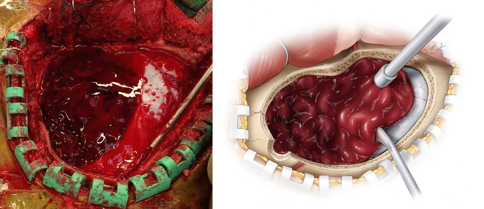 Figure 7: Once the bone flap is elevated a temporal/subtemporal craniectomy is conducted using a large rongeur. After wide exposure of the hematoma, the clot is manually mobilized and evacuated using irrigation and suction. The hematoma may have expanded since the time of the scan, and meticulous inspection of the surrounding normal epidural space is required. All actively bleeding vessels, including the middle meningeal artery branches, should be coagulated using bipolar electrocautery.