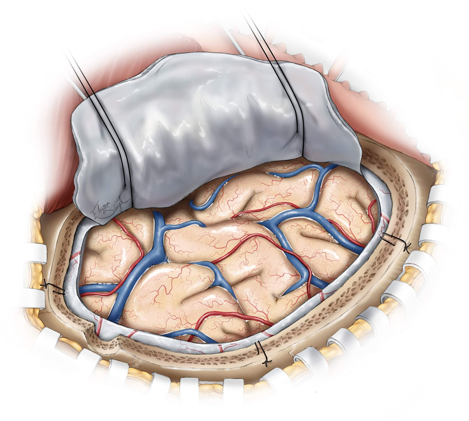Figure 7: Next, the visible cortex should be inspected for obvious contusions and necrotic areas. Necrotic areas are evident because of their bluish discoloration. If significant brain tension is present despite the removal of the hematoma, the large contusions and necrotic areas may be aspirated. This maneuver is not without risk as it may lead to additional bleeding that may be difficult to control because of an edematous and heavily injured brain in patients who have suffered from ASDHs.