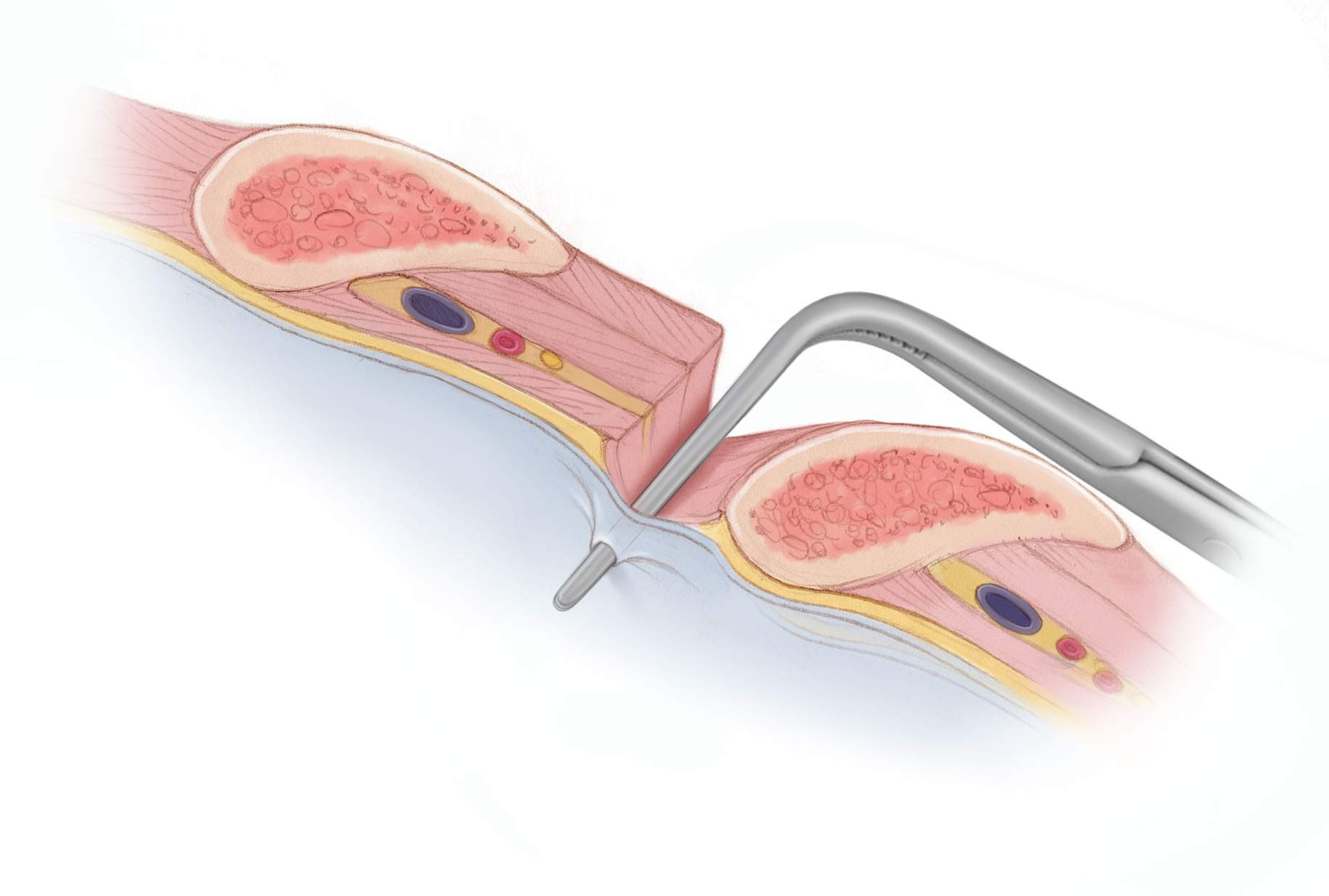 Figure 3: A fine instrument is used to dissect the muscle and puncture the pleura. The dissection should follow the top of a rib to avoid the underlying neurovascular bundle.