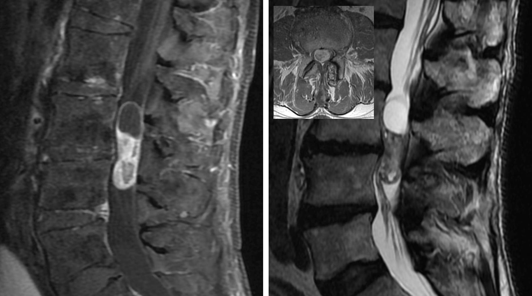 Figure 3: MR imaging of a myxopapillary ependymoma with solid and cystic components and intense heterogeneous contrast enhancement.