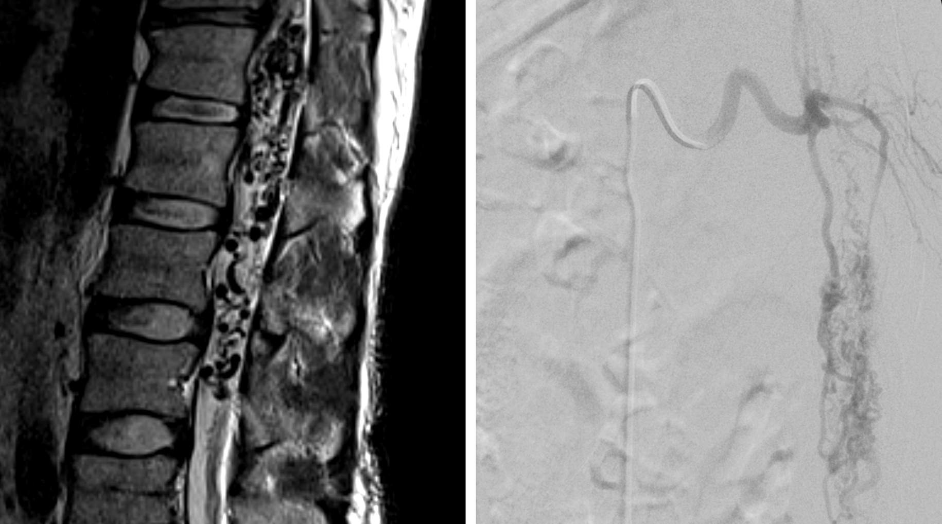 Figure 5: Sagittal MR imaging (left) and anteroposterior angiogram (right) demonstrated a perimedullary arteriovenous malformation. Note the large varices and the widespread serpiginous perimedullary flow voids around the conus medullaris. This patient underwent curative embolization of this malformation. Resection of this malformation can be challenging because of the involvement of the cauda equina.