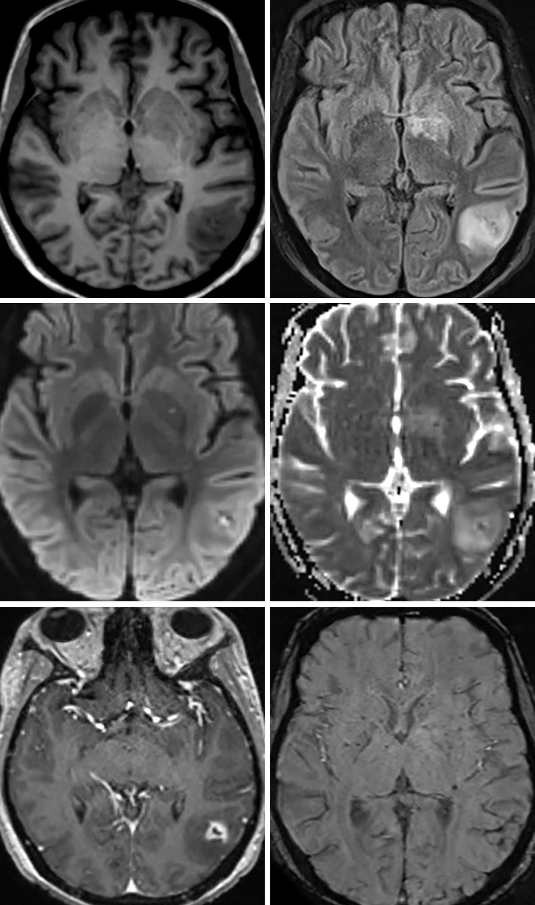 Figure 1: Here we present an HIV patient with low CD4 count who was not taking HAART around the time of imaging. These images demonstrate at least two T1 hypointense (top row left), FLAIR hyperintense (top row right) lesions centered within the left parietal cortex and left basal ganglia. Both lesions demonstrate punctate, central restricted diffusion (middle row). The lesion in the left parietal cortex has a rim of thick enhancement (bottom row left) and there is minimal associated susceptibility artifact (bottom row right) likely reflecting microhemorrhage.