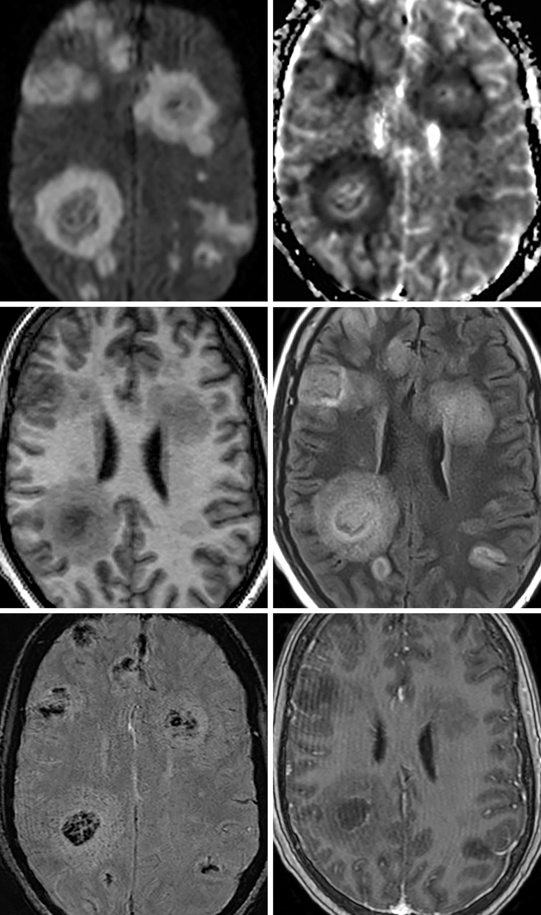 Figure 1: In this patient, there are multiple randomly distributed lesions scattered throughout bilateral cerebral hemispheres. (Top Left and Top Right) The lesions demonstrate a ring pattern, or rim of peripheral restricted diffusion and central hypointense DWI signal. (Middle Left and Middle Right) The rim pattern of signal abnormality carries through on all sequences. (Bottom Left) In this SWI image, there is central hypointense signal, which often corresponds to a combination of hemorrhage and fungal elements. (Bottom Right) As in most patients with aspergillosis, there is little to no peripheral enhancement.