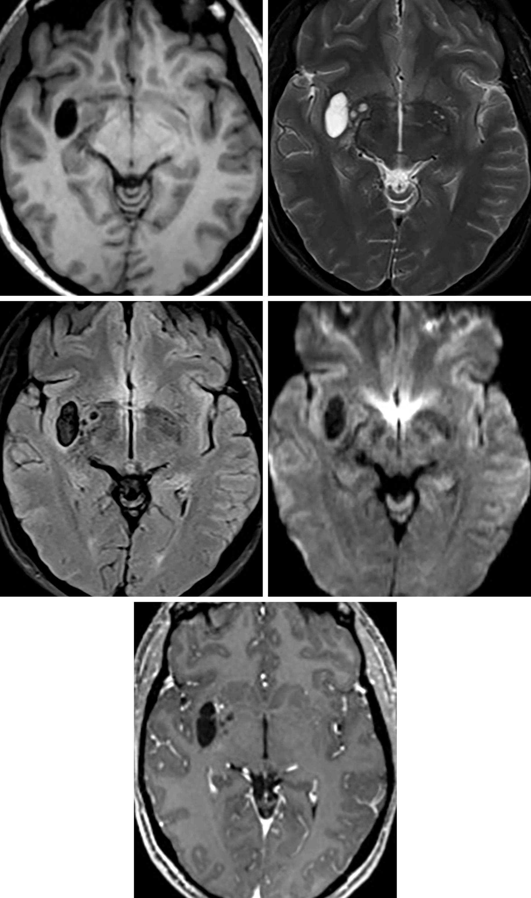 Figure 1: Large, oval structure within the right putamen that follows CSF signal intensity on T1 (top row left), T2 (top row right), FLAIR (middle row left) and DWI (middle row right). Notice that there are a few additional similar-appearing smaller cystic structures medially, also representing dilated perivascular spaces. There is no significant adjacent FLAIR signal abnormality (middle row left) or enhancement (bottom row) to suggest an alternative diagnosis.