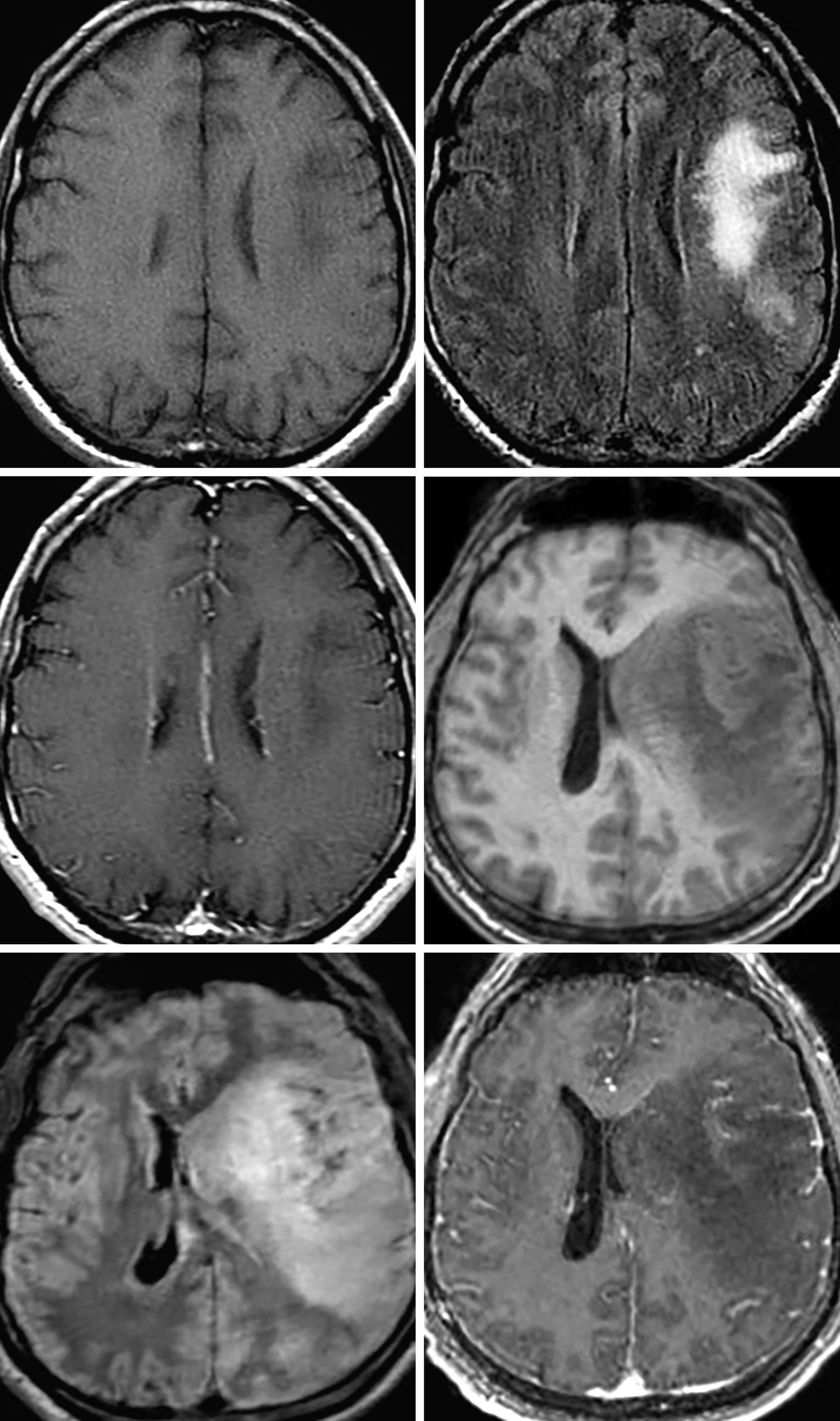 Figure 1: The images above are from an HIV positive patient with low CD4 count. The initial imaging demonstrated left dorsolateral frontal T1 hypointense (top row left), FLAIR hyperintense (top row right) signal that extends through the white matter even to involve the subcortical U fibers, findings that represent PML. The initial imaging was without abnormal enhancement. Six weeks after initiating HAART, the patient developed worsened neurologic deficits and shortly thereafter became obtunded. Followup imaging demonstrated significant interval worsening in the almost mass-like T1 hypointense signal (middle row right) with corresponding FLAIR hyperintense signal (bottom row left), increased mass effect with near complete effacement of the left lateral ventricle and mild left-to-right midline shift. There has been increased mild curvilinear enhancement in the left subinsular white matter (bottom row right), which is typical of IRIS.