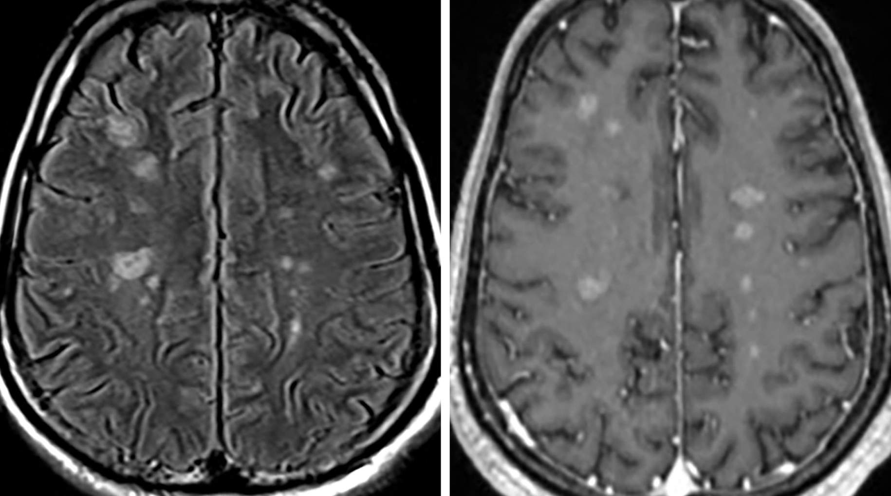Figure 1: In this case, there are multiple scattered foci of FLAIR hyperintense signal (left) with corresponding enhancement (right) in the cerebral parenchyma. More commonly, you will see superficial pachymeningeal or leptomeningeal enhancement with enhancement and thickening of the pituitary gland, infundibulum or cranial nerves.