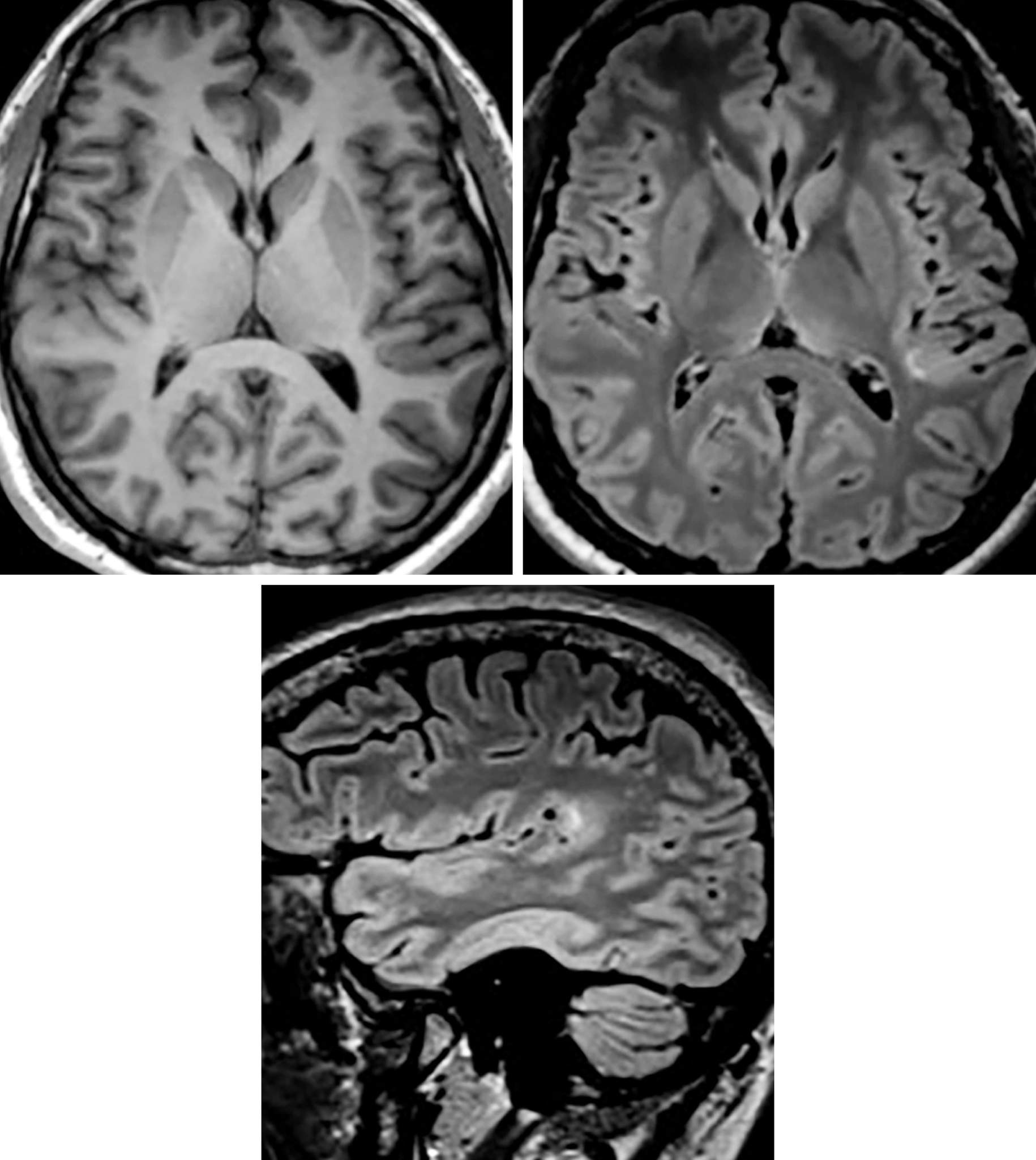 Figure 1: In this case, there is T1-isointense (top left), FLAIR-hyperintense (top right and bottom), nonenhancing signal within the left supramarginal and angular gyri subcortical white matter with overlying cortical thickening. Although cortical dysplasia can be a difficult diagnosis to make, it most commonly is perisylvian in location, as is seen in this case.