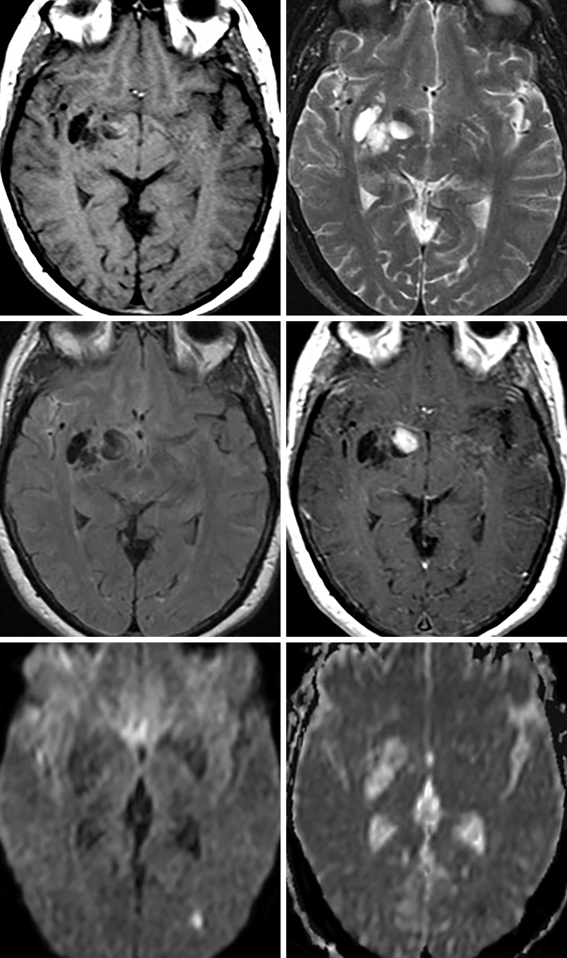 Figure 1: In this HIV-positive patient, there is a cluster of dilated perivascular spaces and pseudocysts with signal isointense to CSF on T1-weighted (top left), T2-weighted (top right), and FLAIR (middle left) imaging. (Middle Right) The medial-most lesion demonstrated more heterogeneous signal with a solid enhancing component along the medial margin. (Bottom Left and Bottom Right) The majority of these lesions in the basal ganglia demonstrate normal or increased diffusivity on DWI/ADC, a common finding in many atypical infections.