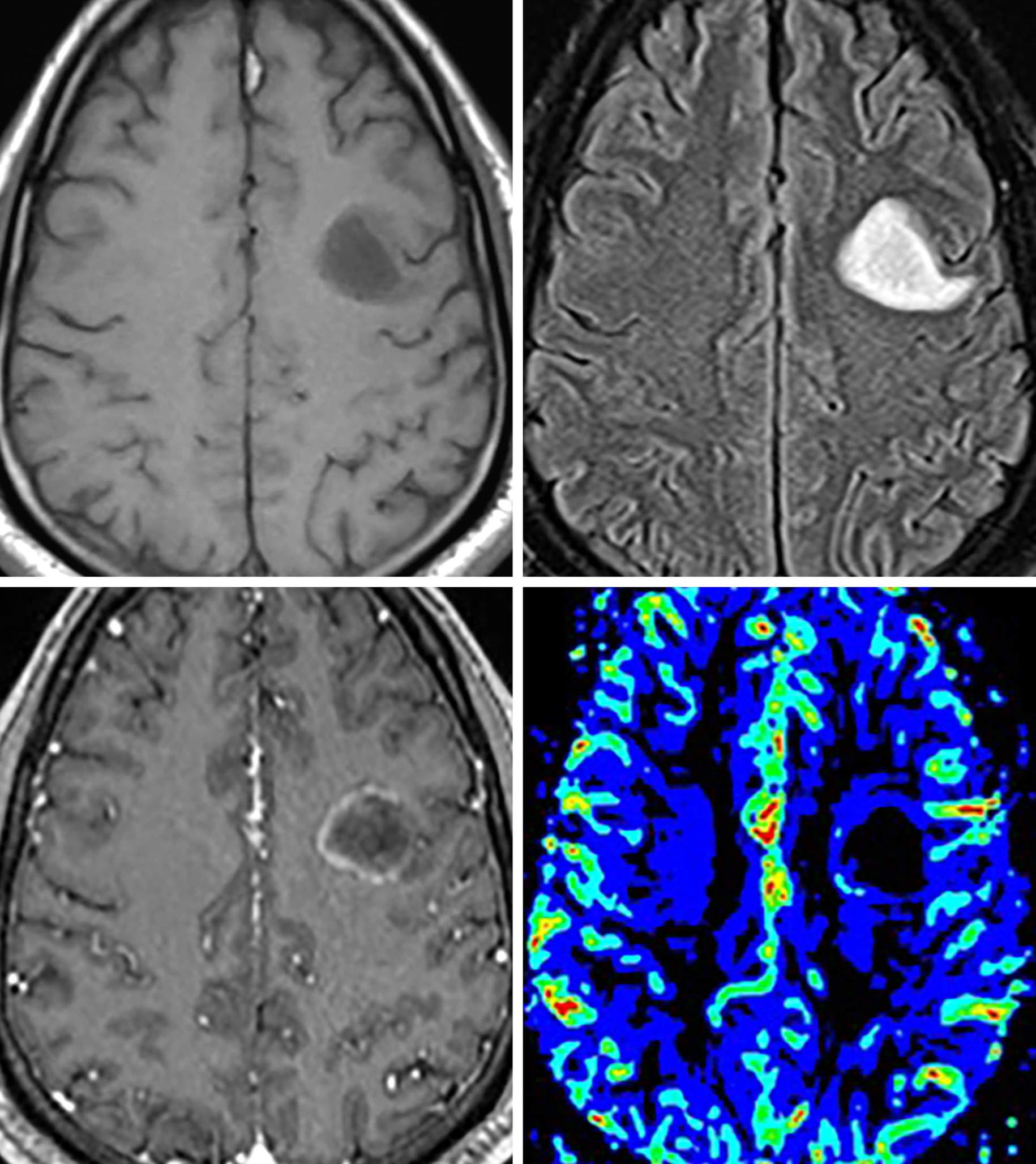 Figure 1: T1 hypointense (top row left) oval, subcortical lesion with corresponding FLAIR hyperintense signal (top row right) and faint rim of incomplete (horse-shoe) enhancement (bottom row left). Notice the mildly increased cerebral blood volume on MR perfusion imaging (bottom row right) along the medial margin. The incomplete rim of enhancement and low T1 signal is fairly classic for a tumefactive, demyelinating lesion. While perfusion can be mildly increased along the periphery of the lesion, it is often much less than would be expected with a high grade glioma.