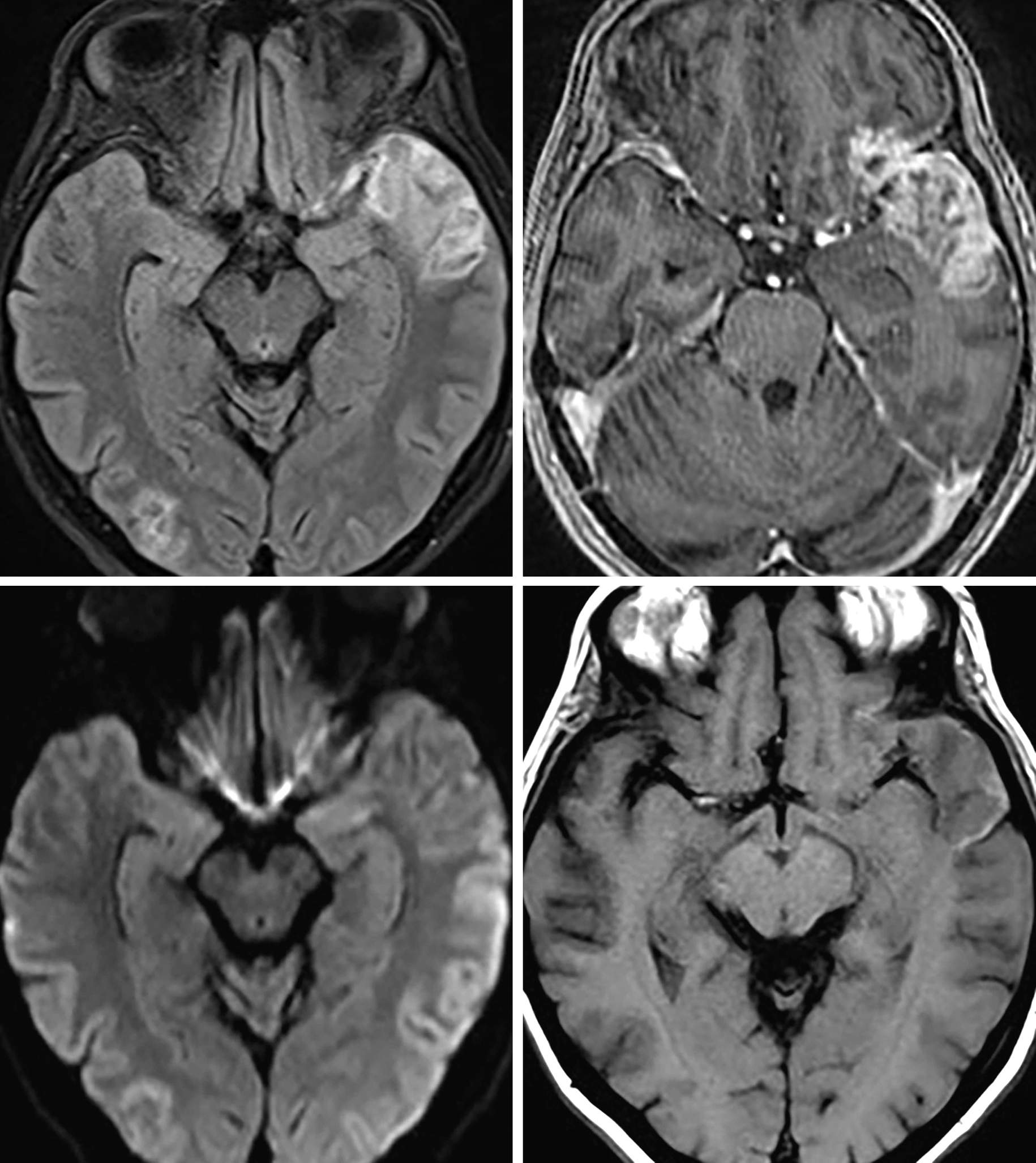 Figure 1: Masslike, cortical FLAIR hyperintense signal (top row left) with heterogeneous enhancement (top row right) in the anterior left temporal lobe and right occipital lobe. No evidence of reduced diffusivity on DWI (bottom row left). This presentation is often challenging and requires an appropriate history to make the correct diagnosis as a subacute infarction can commonly be mistaken for a neoplasm. The faint T1 hyperintensity in the cortex (bottom row right) can be a clue to cortical laminar necrosis of subacute infarct.
