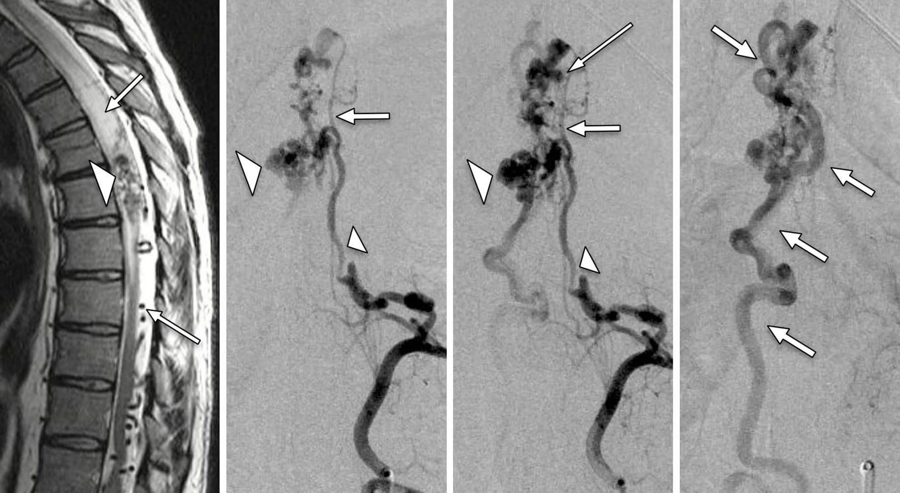Figure 4: 38-year-old M with rapid onset mid-thoracic Brown-Sequard syndrome. T2W MRI demonstrates hyperintense intramedullary cord signal (upper arrow, left image), mid-thoracic nidus at the T6 vertebral level (arrow head), and serpiginous intra-dural flow voids (bottom arrow, left image). Left T7 segmental artery angiography in demonstrate a mid-thoracic intramedullary AVM nidus (large arrow head, center images). The dominant and most direct supply arises from anterior spinal arterial feeders (small arrow head) supplied by the left T7 radiculomedullary artery. Several nidal aneurysms are noted. Tortuous, arterialized perimedullary veins (arrows, right image) drain the nidus.