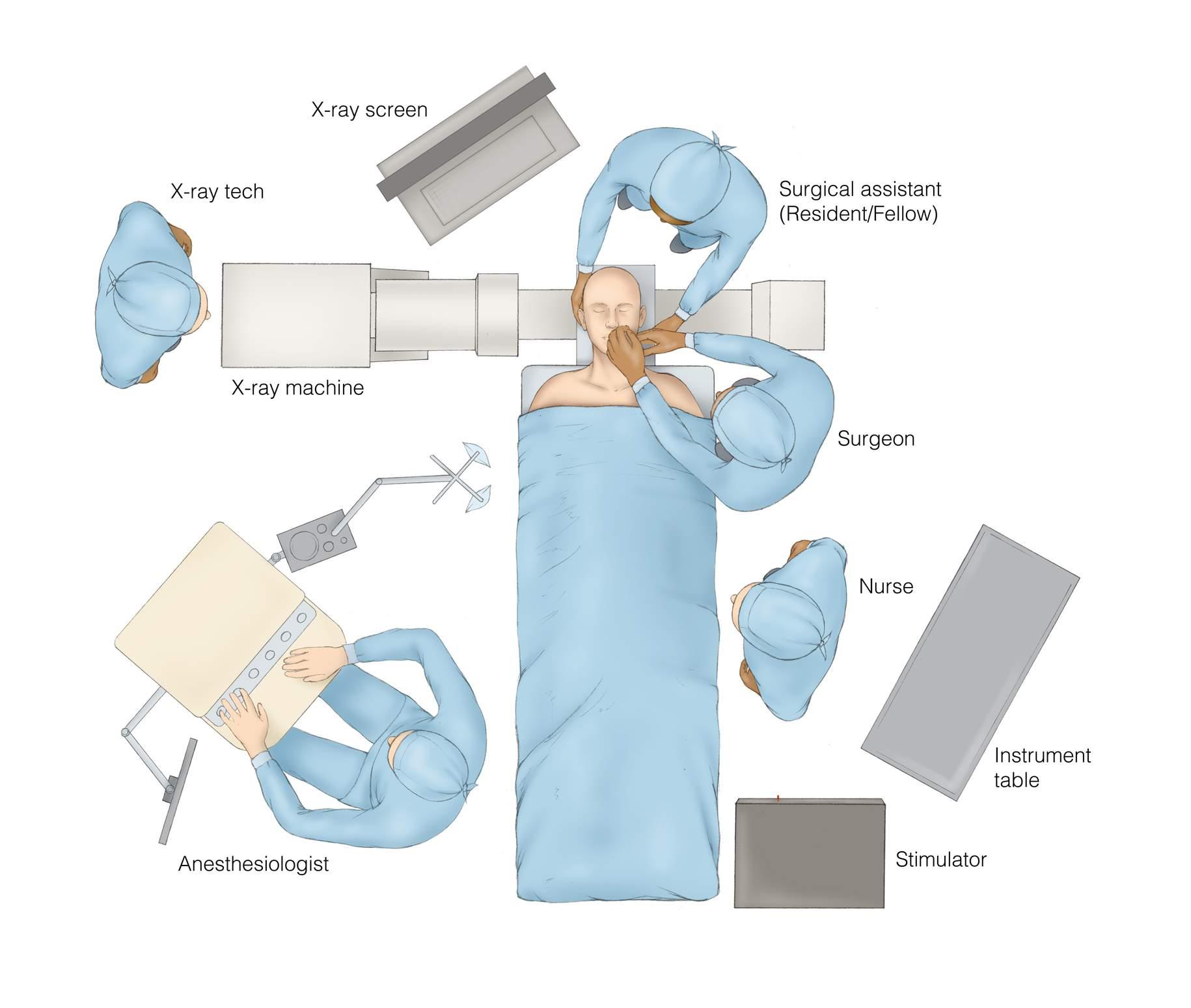 Figure 5: The organization of the operating room for a percutaneous trigeminal rhizotomy.