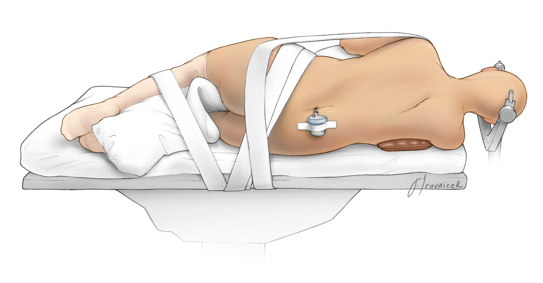 Figure 11: The lateral oblique position requires careful padding of all pressure points and meticulous fixation of the patient 's body to the table. Obese patients are especially at risk of migration or displacement. The adhesive tape should not compress the peroneal nerve near the head of the fibula.