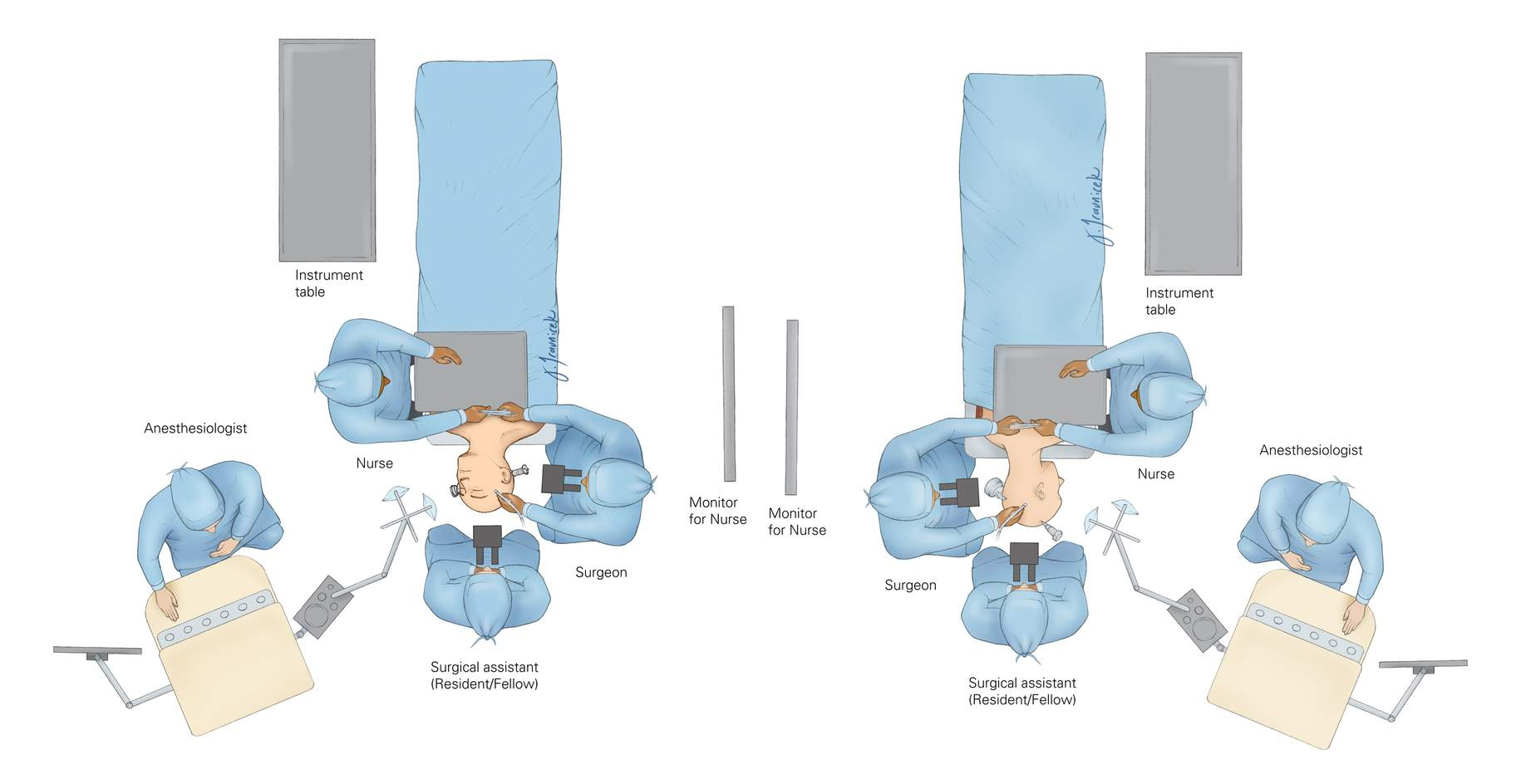 Figure 5: The operating room setup for pterional (left image) and retromastoid (right image) craniotomies. I prefer to sit across the table from my assistant. This facilitates efficient transfer of instruments while allowing me to keep my focus of attention on the operative field. For further details, refer to the chapter on the  Operating Room Setup and Work Flow .