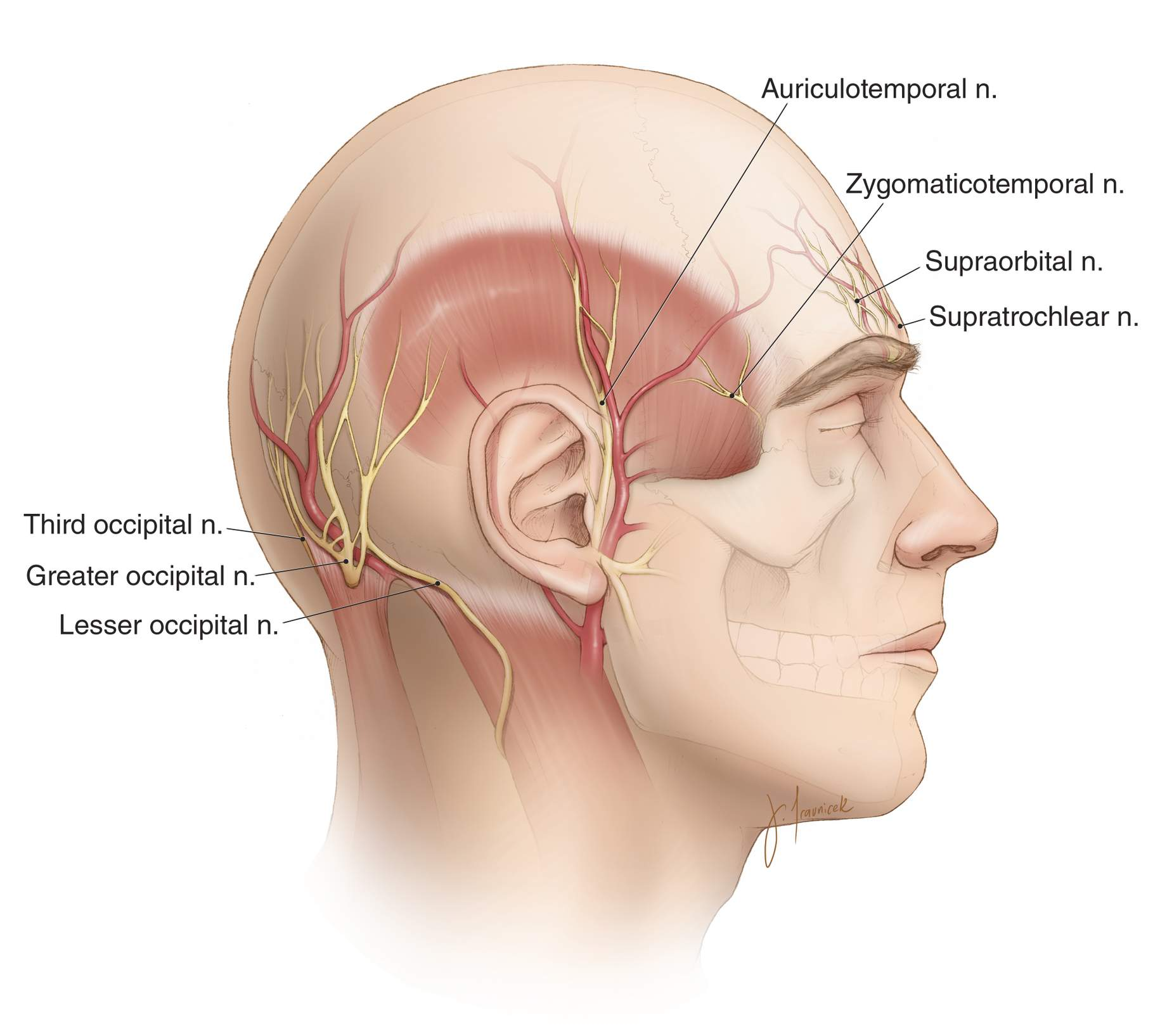Figure 3: The relevant neurovascular anatomy of the scalp for planning incisions is shown. The vasculature of the scalp is derived from the internal and external carotid arteries. These arteries include the supraorbital, supratrochlear, superficial temporal, posterior auricular, and occipital arteries. The incision should preserve these vessels as much as possible and avoid transecting most of their branches; this measure will promote vascularized scalp flaps.  The vasculature of the scalp becomes more tenuous toward the midline. Therefore, the base of the incision should be close to the periphery of the scalp. Fortunately, the scalp's vascular network is robust, and this leads to a low risk of flap necrosis during cranial surgery despite narrow flap pedicles.