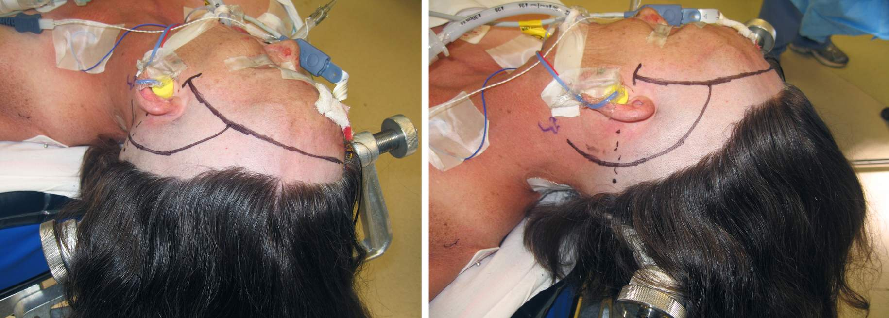 Figure 15: For combined approaches involving a pterional craniotomy, the incision shown in the photograph above can be used. The junction of the incisions is at risk because of a poor vascular pedicle.