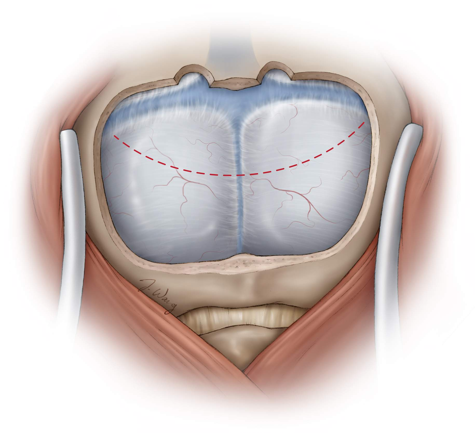 Figure 6: The fear of a dural venous injury should not deter the operator from generously uncovering these structures to allow expansion of the supracerebellar operative corridor through mobilization of the dural sinuses superiorly. Placement of burr holes over the transverse sinuses is relatively safe, and correct use of the footplate tip pursuing the contours of the inner table leads to a single-piece bone flap exposing the dura and the roof of the venous sinuses.