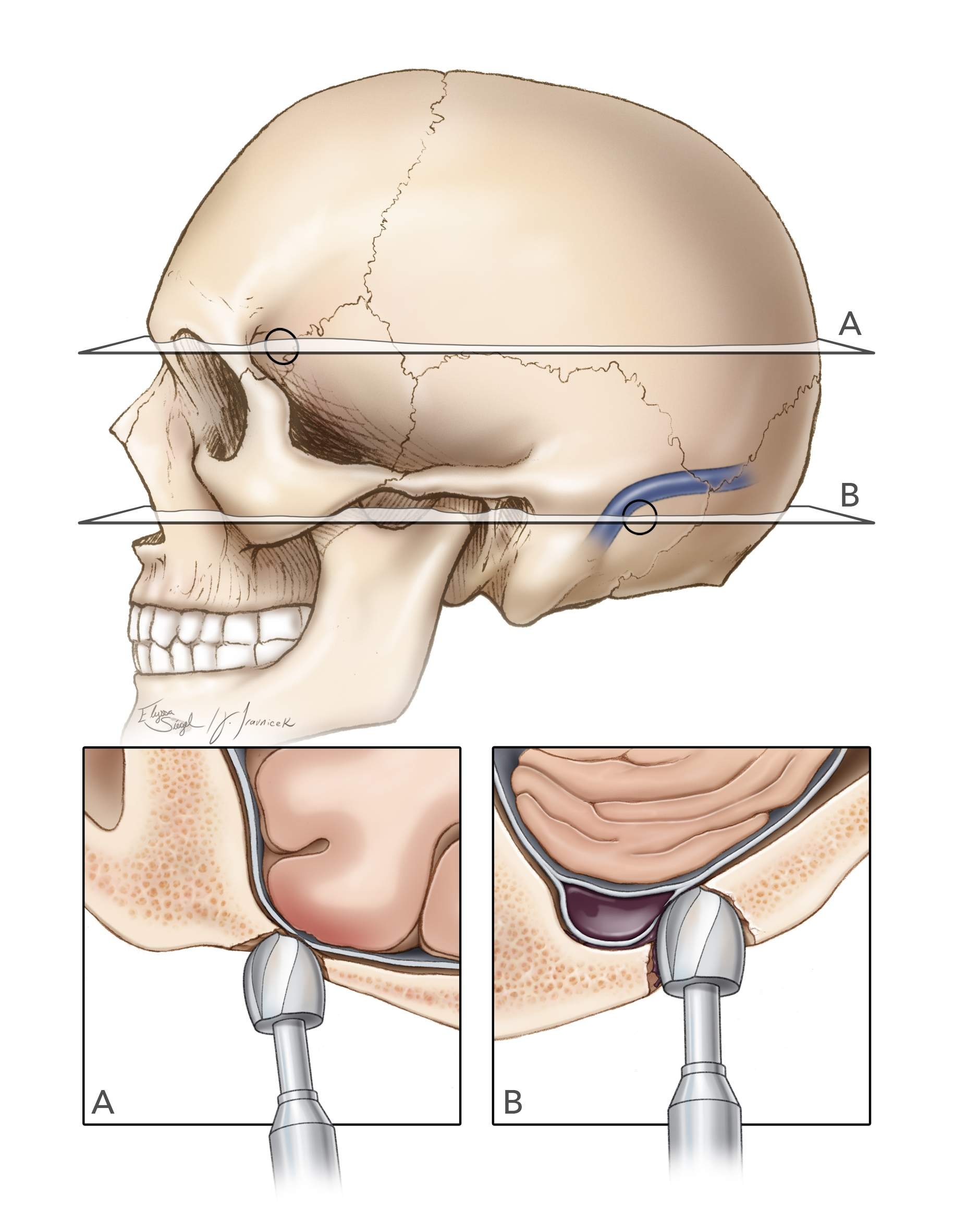 Figure 7: The uneven skull thickness (for example, within the key hole or around the venous sinuses) can be a significant cause of cortical, dural and venous sinus injury because the cutting burrs along the equator of the acorn bit can reach the dura covered by the thinner temporal section of the skull or the wall of the sinus while the tip of the drill is still working on the adjacent thicker frontal or occipital bone within the burr hole, respectively.  This event is especially problematic when the surgeon is making burr holes over the dural sinuses for parasagittal and retromastoid craniotomies. Because the walls of the dural sinuses embed themselves within the inner table, the cutting burrs on the side of the drill bit can injure the sinus wall while the drill tip works on the thicker bone covering the sidewalls of the sinus.