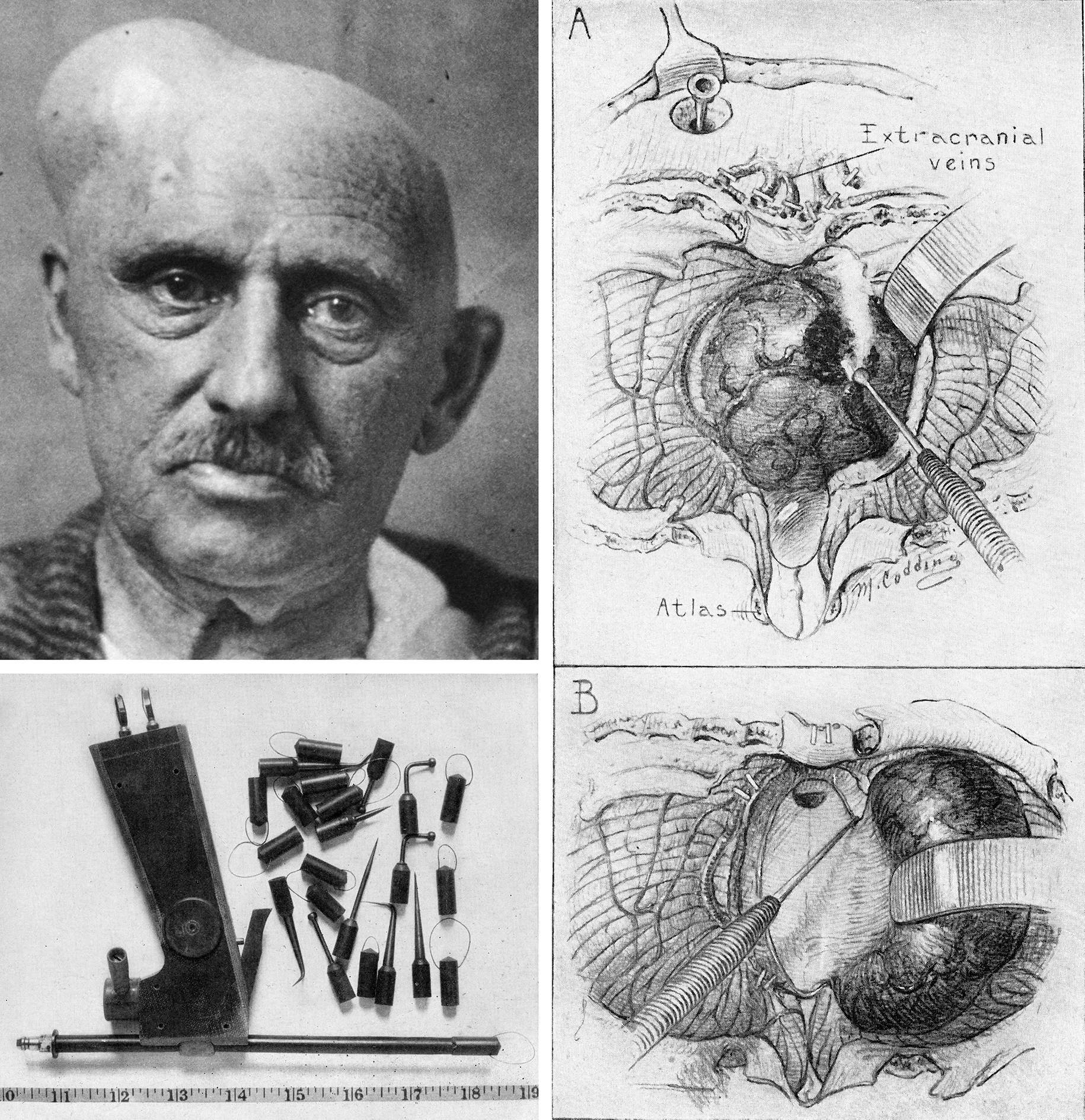 Figure 1: Harvey Cushing introduced Bovie's electrocautery to neurosurgery. This photograph shows the first of Cushing's patients who underwent resection of his tumor using this device (left upper image). Cushing demonstrated the use of this instrument (left lower image) for resection of a 4th ventricular tumor (right image)(Images courtesy of the Cushing Brain Tumor Registry at Yale University.)