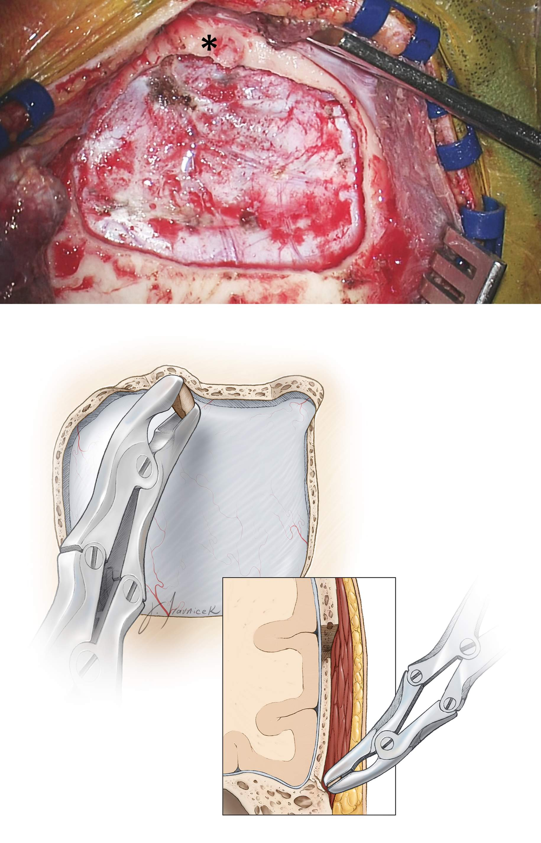 Figure 6: The craniotomy in relation to the root of zygoma (*) is evident (top). Most often, the inferior edge of the craniotomy leaves a strip of overhanging bone, obscuring a clear operative path toward the middle fossa floor. Subsequently, a Leksell rongeur may be used to remove this overhanging bone until the edge of the craniotomy is at the level of the floor (bottom). A handheld drill further assists with this task.