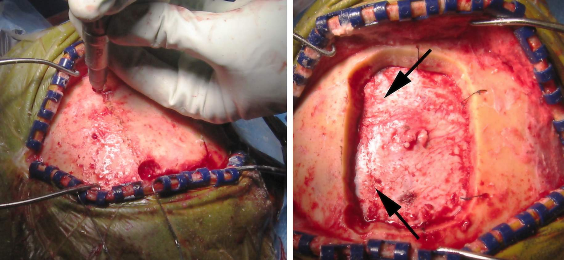 Figure 5:  The last bony cut should be made over the venous sinus (left image).  This maneuver allows timely elevation of the bone flap if bleeding is encountered and an injury to the sinus is suspected. If the lesion extends to near the sinus or interhemispheric fissure, the corresponding length of the sinus is exposed (right image, arrows point to the location of the venous sinus).
