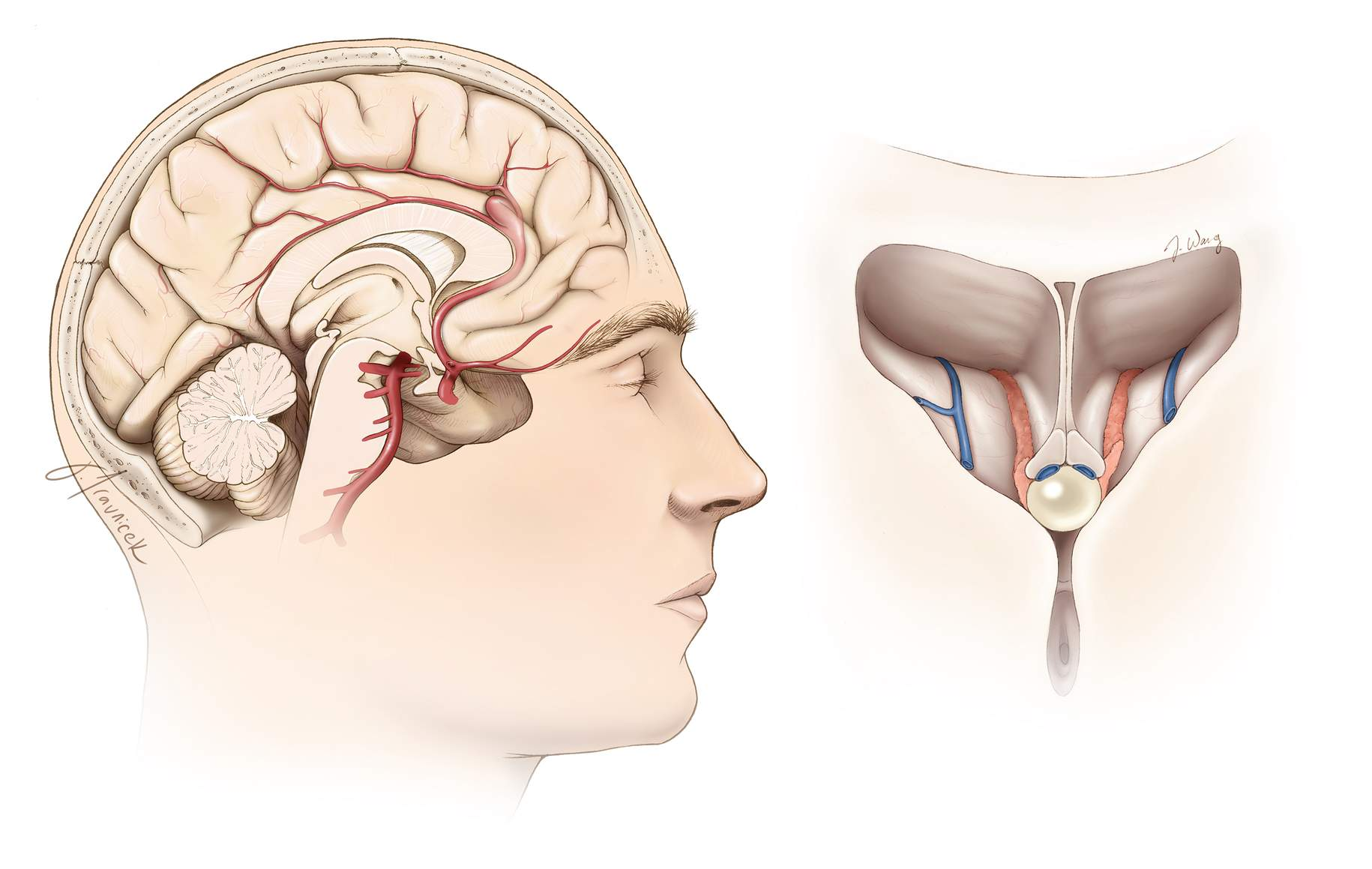 Figure 6: A slightly flexed neck position is reasonable for a pericallosal aneurysm just above the level of the genu (left image). The location of the lesion in relation to the genu determines the degree of neck extension. A  colloid cyst  at the foramen of Monro is accessible through the transcallosal approach (right image). The transcallosal route provides a panoramic view of the choroid plexus and internal cerebral and thalamostriate veins.