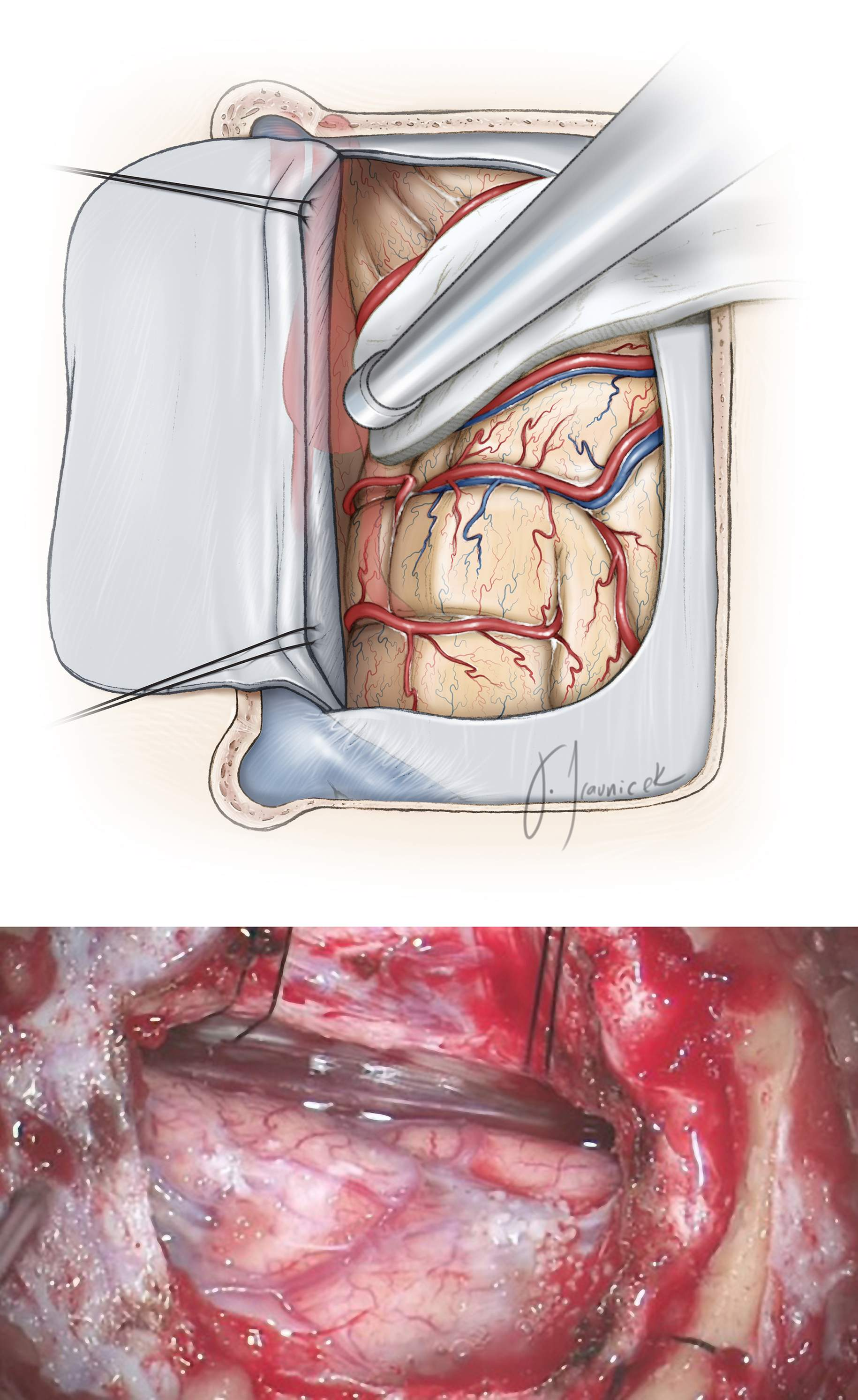 Figure 10: The dura is opened in a U-shaped flap based on the sagittal sinus (top image-supine position). Retraction sutures in the superior falx rotate the venous sinus laterally and expand the interhemispheric reach. Some small bridging veins may be sacrificed, but the larger ones should be preserved. Note that gravity retraction facilitates mobilization of the dependent hemisphere away from the midline (bottom image-lateral position).
