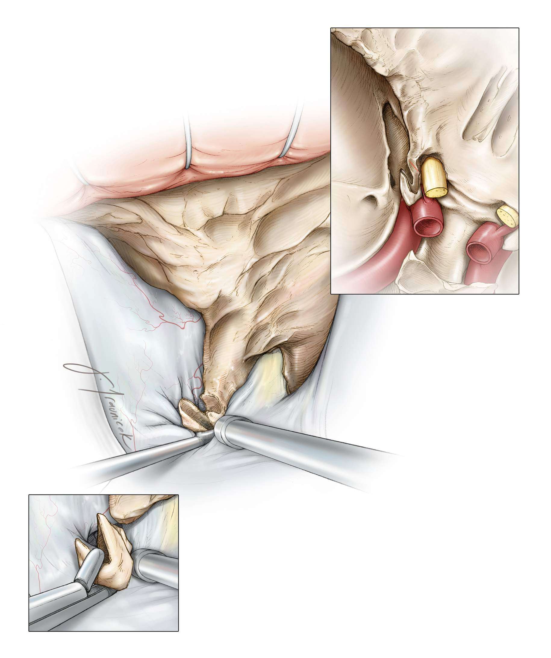 Figure 15: The remaining shell of the clinoid is fractured by a curette and delivered. Careful blunt dissection and manipulation of this remaining portion is often required for its release from the inter- and petroclinoid ligaments. A clear view of the optic nerve allows the surgeon to avoid injuring it. A pituitary rongeur is used to pull out the loose fragment (lower left inset image). Venous bleeding from the cavernous sinus is easily controlled by judicial packing of thrombin-soaked gelfoam. Overpachking is not advised so that the additional space gained by the clinoidectomy is not obliterated.