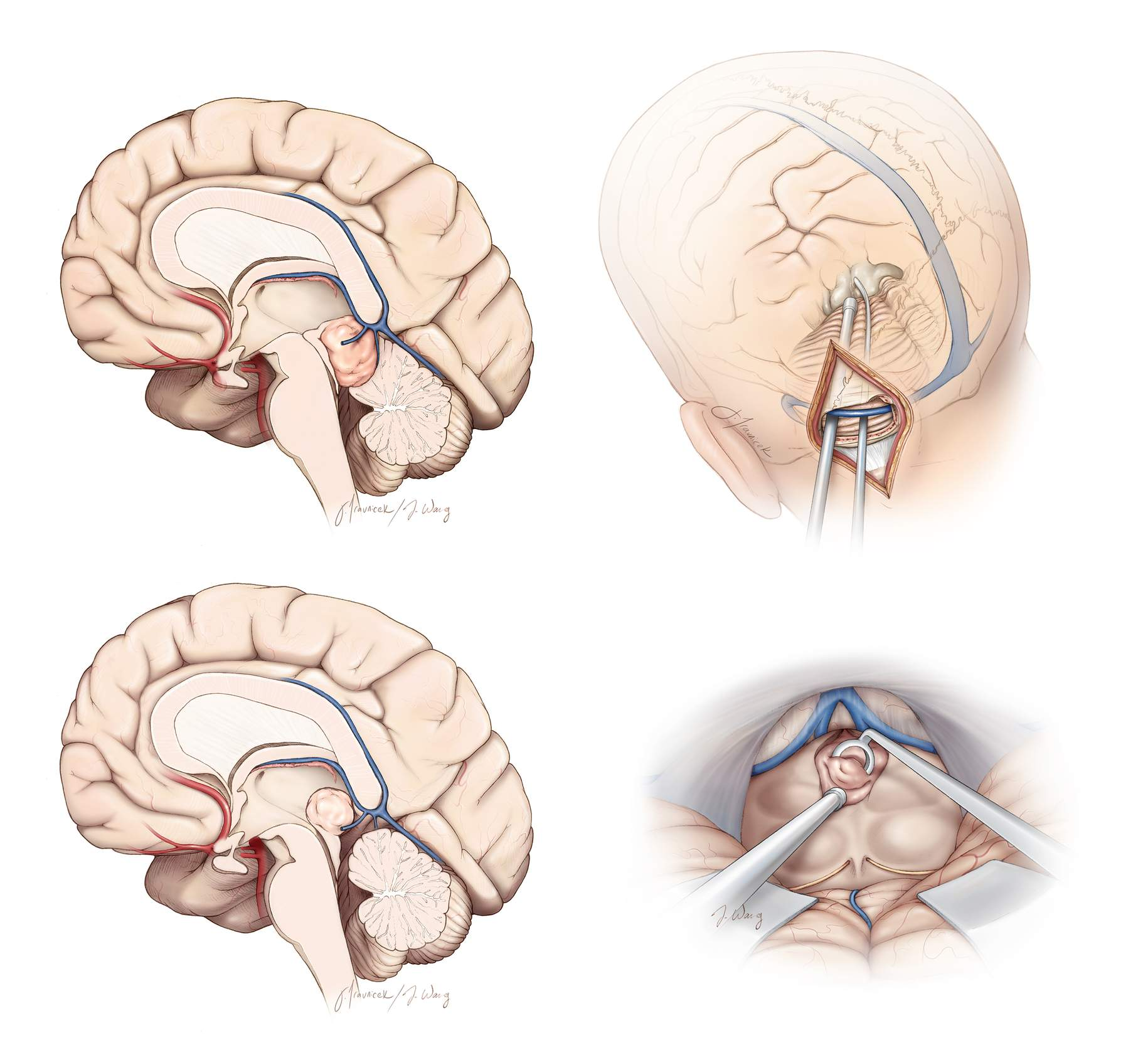 Figure 1: The paramedian supracerebellar approach has numerous advantages over the midline approach: 1) the craniotomy does not place the frequently more dominant right transverse sinus and torcula at risk and is less invasive, 2) only one cerebellar hemisphere is manipulated, 3) the vermian bridging veins are often protected, and 4) the lower slope of the lateral cerebellum provides a more inferior trajectory to the inferior pole of the tumor. Repeat surgery may be performed through the intact contralateral supracerebellar route. The paramedian or midline approach allows exposure of posterior third ventricular tumors (bottom images).