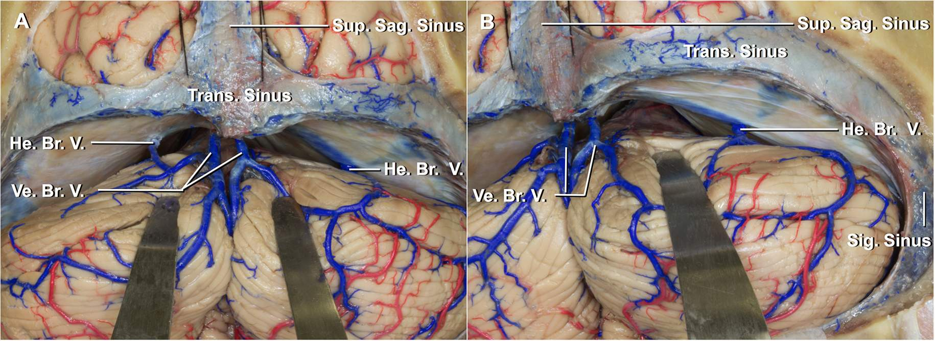 Figure 6: Compared with the midline approach (left image), the paramedian supracerebellar approach (right image) avoids most of the midline vermian bridging veins.