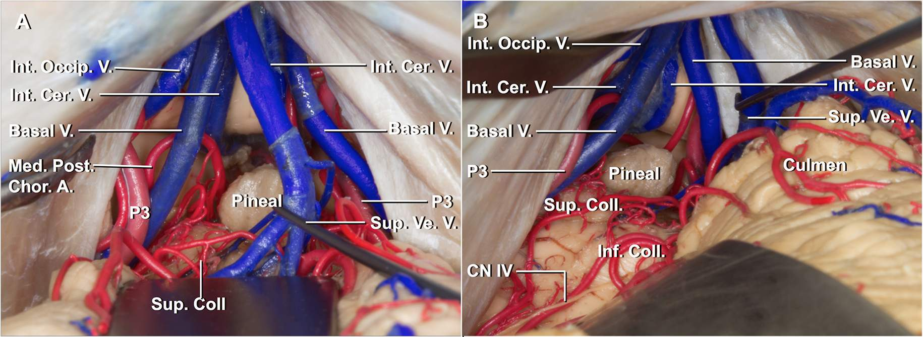 Figure 7: The midline route (left image) depends upon retraction of the culmen, whereas the paramedian route (right image) reaches over the more inferiorly situated lateral cerebellum. Cranial nerve IV is situated at the lower edge of the dissection field.