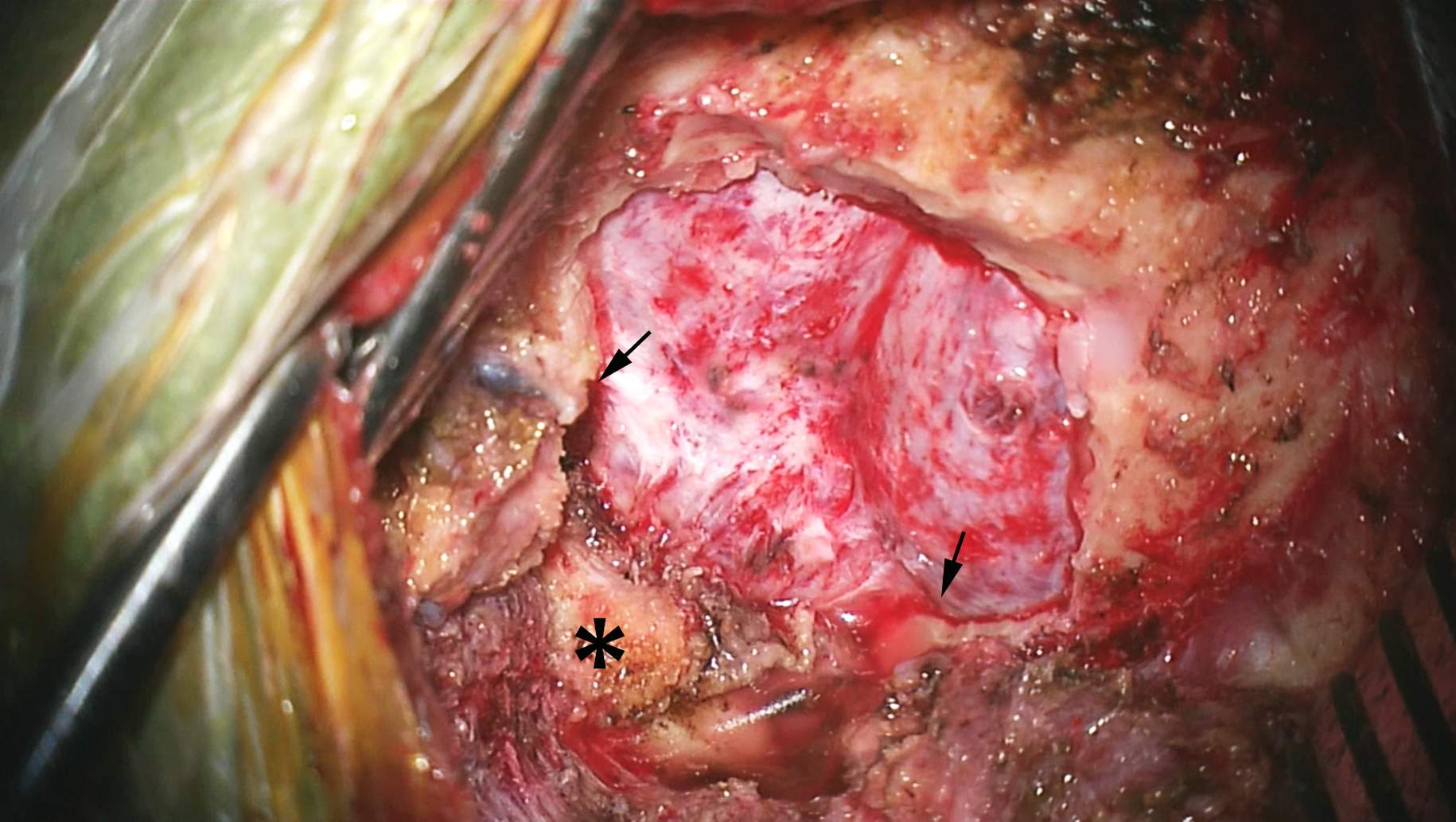 Figure 8: The bony opening is demonstrated. The posterior arch of the foramen magnum is generously removed (arrows) and the craniocervical ligament resected. The C1 laminae (its tubercle is marked with *) are not removed in this case.