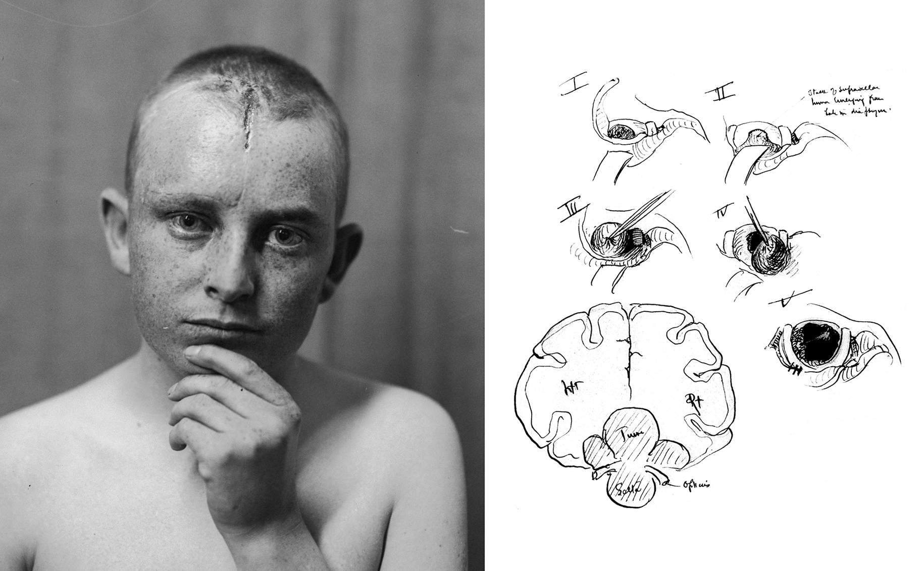 Figure 3: By 1929, Cushing had excelled in transcranial techniques and abandoned the transnasal route in favor of the subfrontal approach. In his notes, he documented the incision (left) and operative findings (right) for the subfrontal approach to a craniopharyngioma (Courtesy of the Cushing Brain Tumor Registry at Yale University).