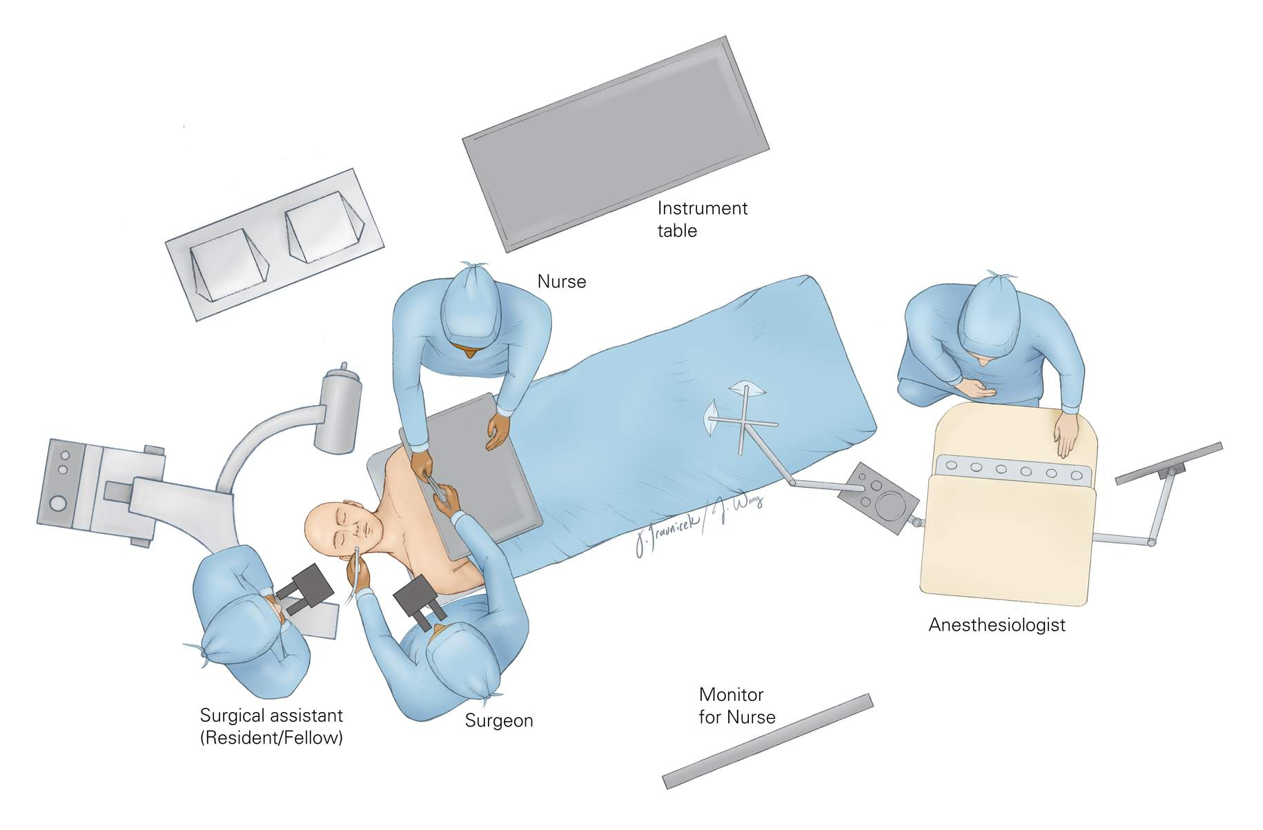 Figure 8: The setup of the operating room depends on the handedness of the surgeon because the surgical technician and the operator are situated across from each other. A right-handed operator is able to readily interact with the surgical technician for the transfer of instruments. The neuronavigation system or fluoroscope is also at the head of the table, across from the surgeon. The anesthesiologist is placed at the foot of the table.