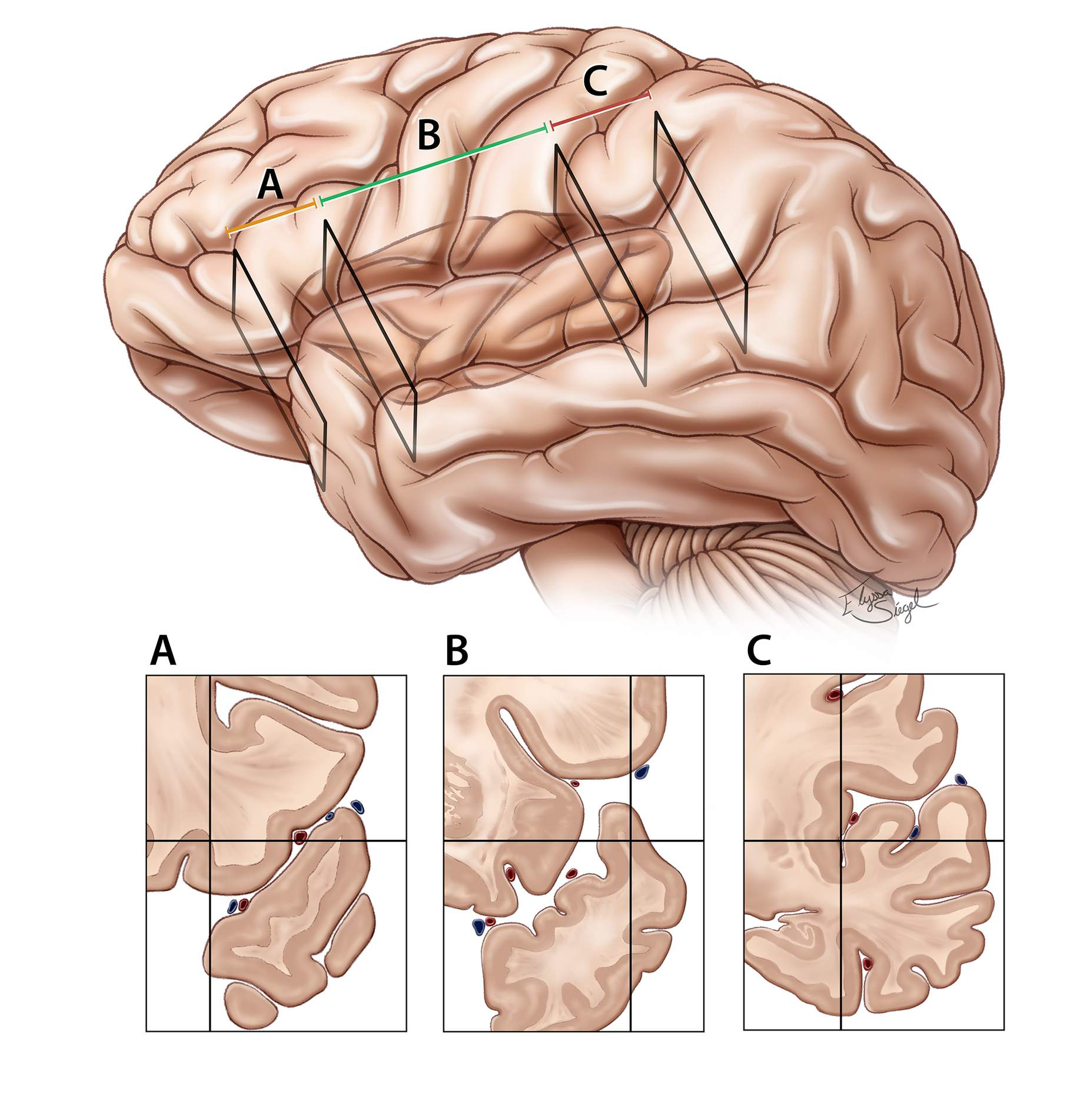 Figure 4: The proximal section of the fissure (vallecula) houses the internal carotid artery bifurcation and limen insula, where the MCA bifurcates into its superior and inferior trunks. The vallecula also contains lateral lenticulostriate perforators and the deep Sylvian vein. Opening of the vallecula will provide space to reach the proximal MCA and internal carotid artery bifurcation territories.  The  proximal (sphenoidal)  section (A) also includes the area (3-4 cm) over the planum polare where the pial surfaces can be highly adherent, requiring gentle microdissection. The paucity of the vessels in this section allows adherence of the frontotemporal opercula.  The  middle (insular) section  (B) is 6 to 7 cm in length and extends from the limen insula to the posterior insular point. In this section of the fissure, the sulci are less interdigitated, possibly simplifying fissure dissection.  The  posterior (retroinsular) section (C)  is short (4–5 cm) but deep, and covered by the supramarginal, transverse temporal, and transverse parietal gyri. The dissection can be especially challenging at this segment because of complex interdigitations of the opercula.