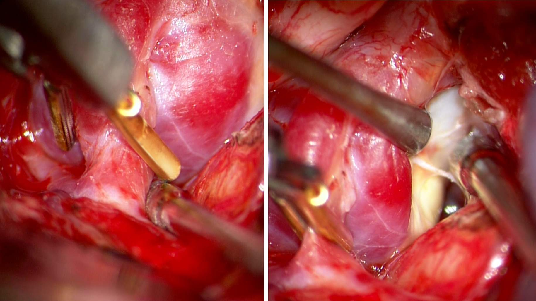 Figure 1: Distal temporary clipping is used as part of the retrograde suction decompression technique for clip ligation of a large posterior communicating artery aneurysm (left). Remarkable aneurysm deflation facilitates safe and effective permanent clip application (right).