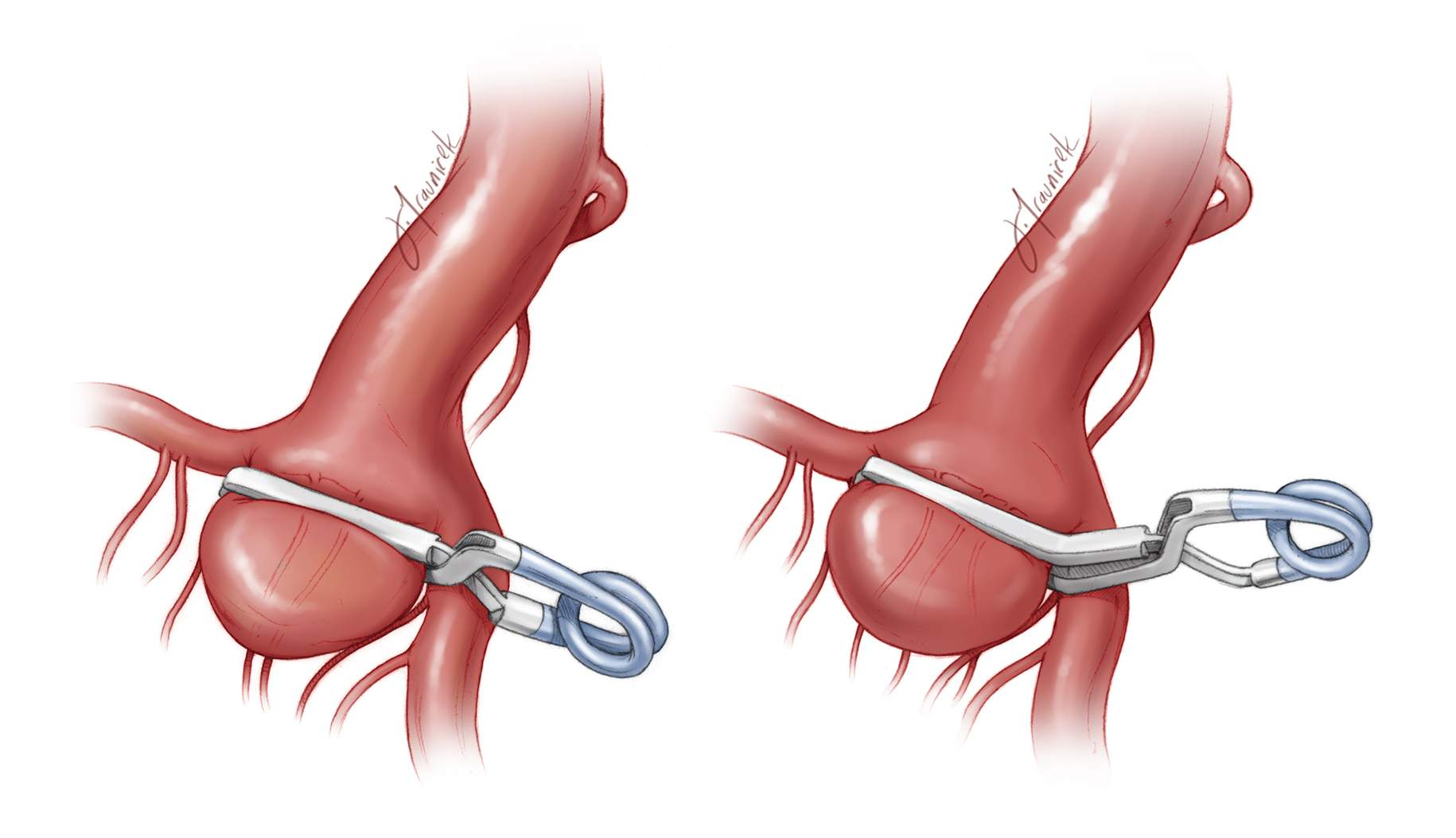 Figure 8: An internal carotid artery (ICA) bifurcation aneurysm is shown clipped using a simple straight clip (left image) or an angled clip (right image). The angled clip may avoid the MCA branch, ensuring that the hinge of the clip does not kink its lumen. The medial ICA perforators must be saved.