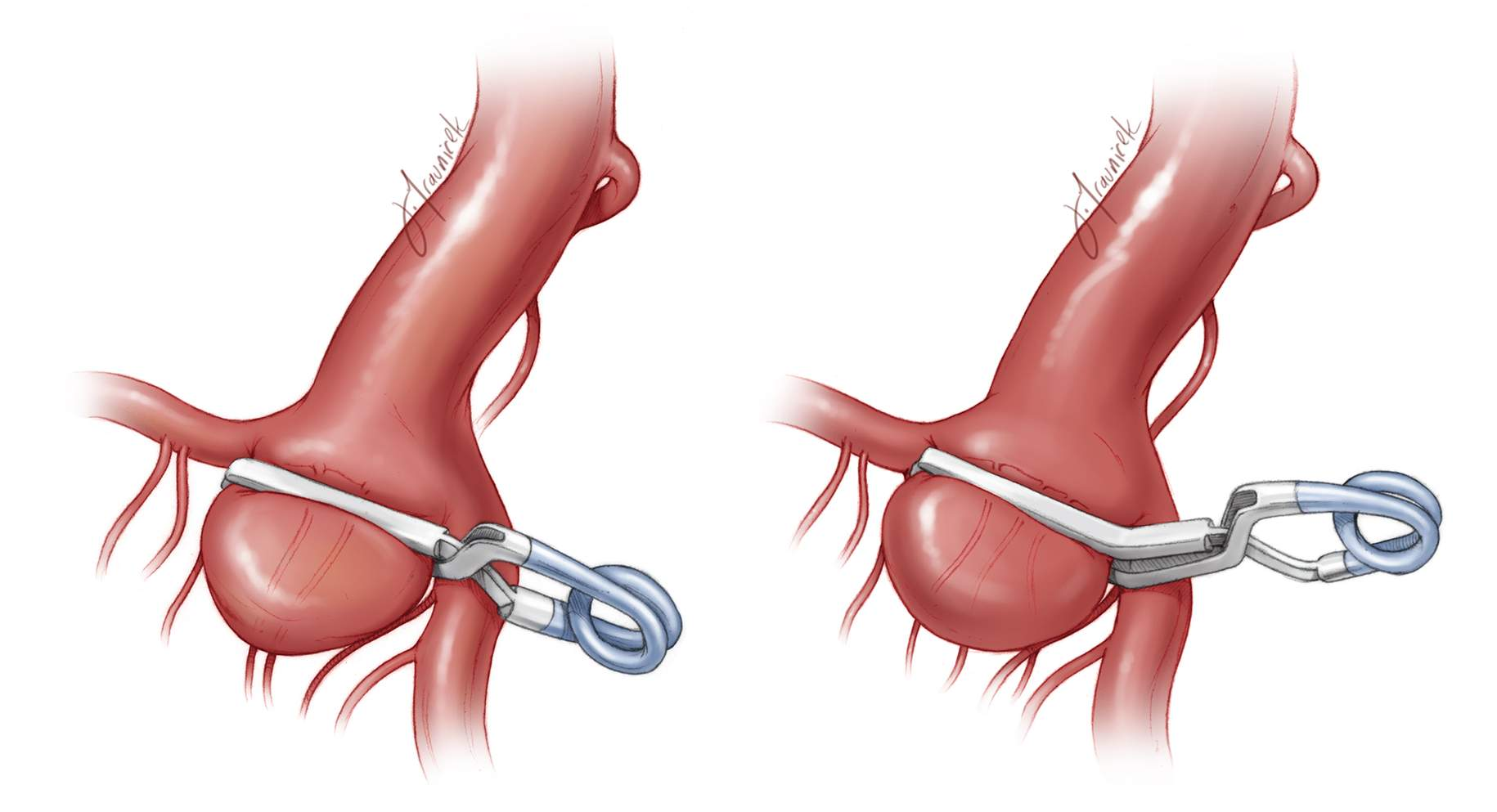 Figure 18: An ICA bifurcation aneurysm was clipped using a simple straight clip (left image) or an angled clip (right image). The angled clip may avoid the MCA branch, ensuring that the hinge of the clip does not kink its lumen.