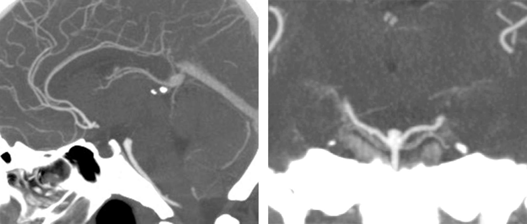 Figure 1: A low-lying basilar bifurcation aneurysm with its neck located up to 1cm below the dorsum sella can be exposed via the subtemporal route.