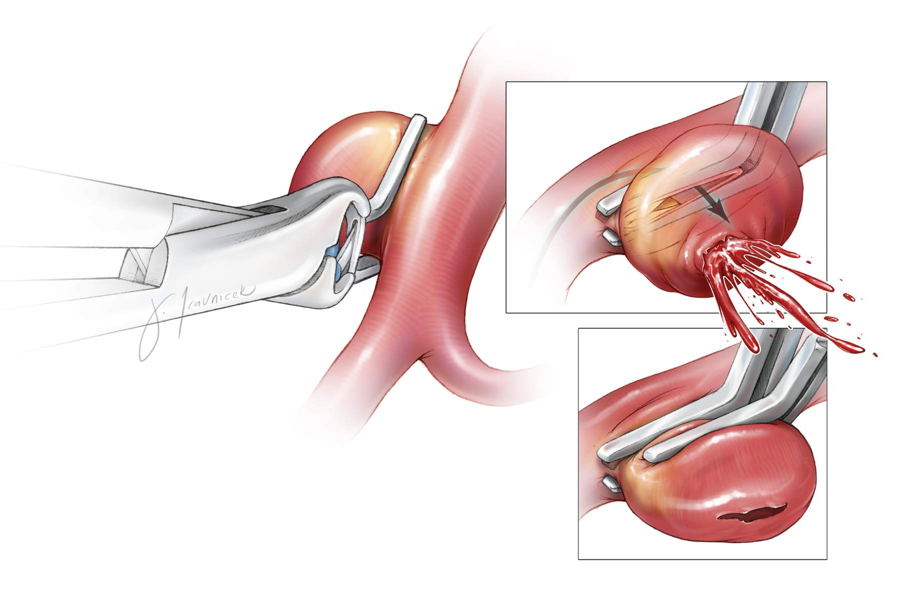 Figure 3: Incomplete closure of the atherosclerotic neck can cause IOR. In this sketch, the distal atheroma prevents approximation of the clip blades. Placement of a second tandem clip short of the atheroma can collapse the neck. If the atheroma is at the proximal neck, a second fenestrated tandem clip is appropriate to close the distal neck.