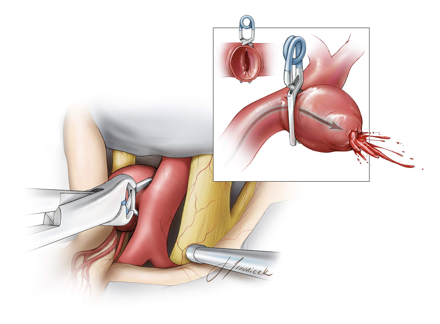 "Figure 24: Once the ""knuckle"" of the PCoA origin has been identified and the route of the PCoA around the inferior pole of the aneurysm is estimated, a straight clip is deployed to collapse the neck parallel to the axis of the ICA. Perpendicular clip application (inset image,) especially in the case of a thick-walled and atherosclerotic aneurysms, leads to partial clipping, intrasaccular turbulence, and rupture."