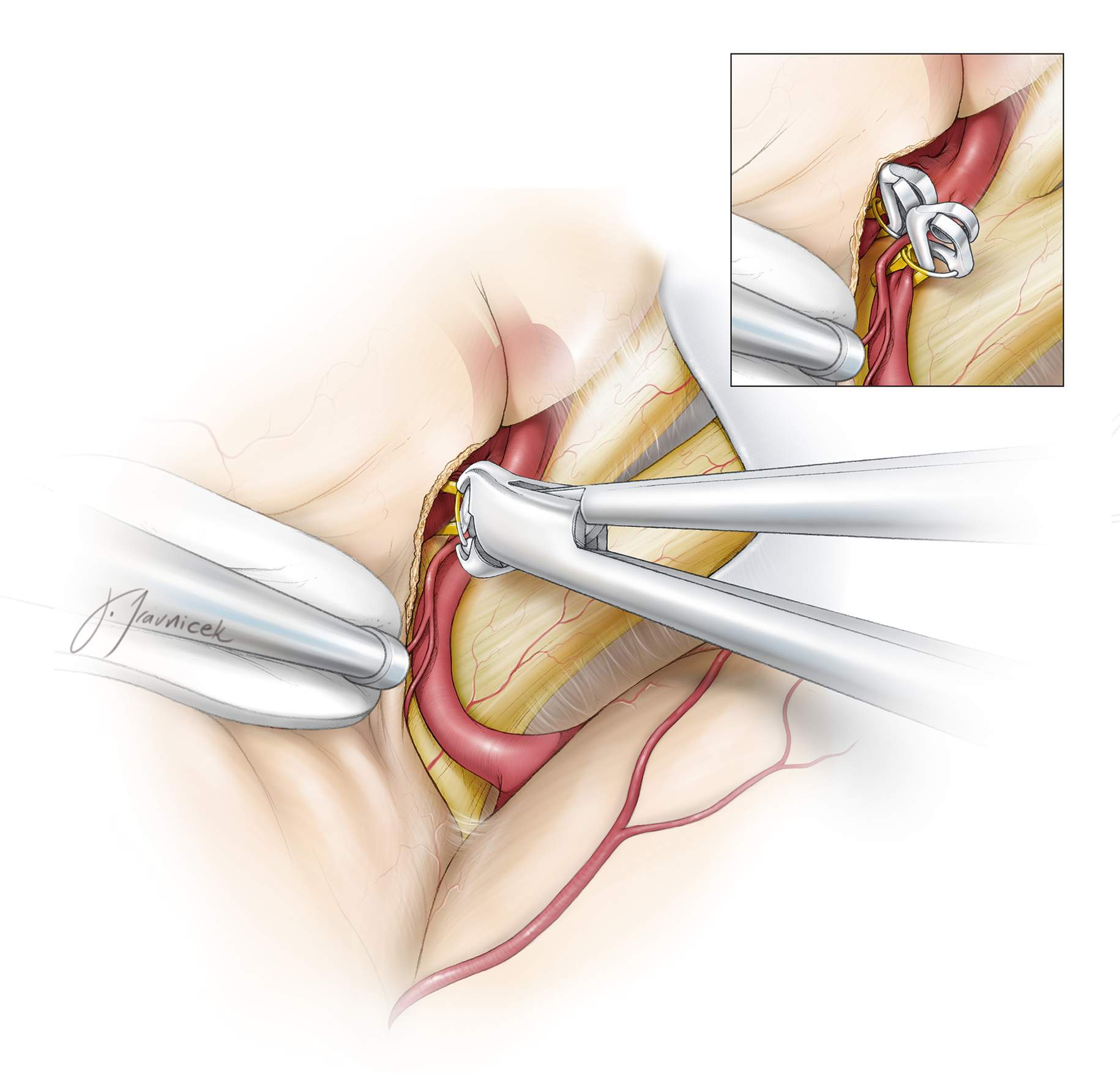 Figure 11: Temporary clips may be applied on either or both of the A1 segments at any time during the surgery. I prefer to secure contralateral control early, given that application of a clip onto the contralateral A1 is technically challenging if there is an intraoperative rupture. Care should be taken to position the clip's spring system away from the operative view of the ACoA complex. Commonly, a slightly curved temporary clip is useful for this purpose.  Application of one temporary clip on the dominant A1 is all that is needed to deflate the aneurysm enough while maintaining some flow within the ACA complex.