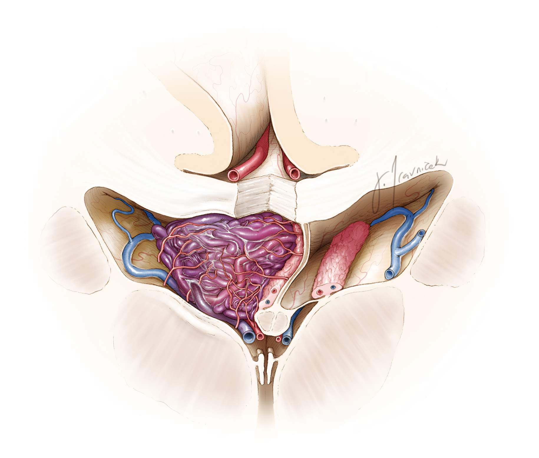 Figure 10: This sketch emphasizes the plexal feeders and the direction of the draining veins toward the ICVs.