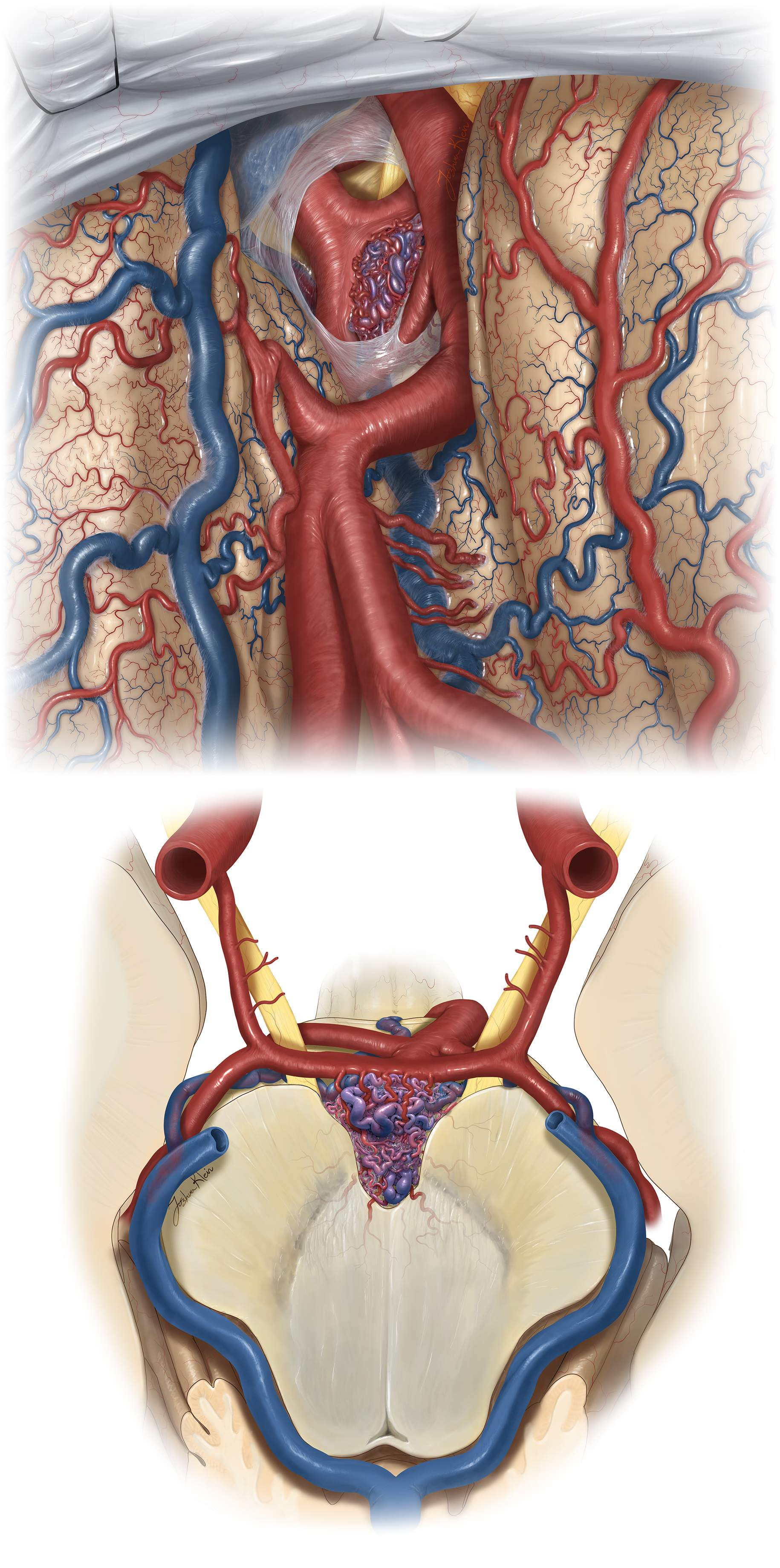 Figure 7: Naturally, this is a deep-seated AVM with many vital structures in the proximity (top image.) A wide operative corridor is mandatory via generous Sylvian fissure dissection.The typicalangioarchitecture of an anterior midbrain AVM is demonstrated. Please note the deep perforating arteries within the brainstem that have to be strictly protected. The piamust not be violated during resective maneuvers (bottom image.)