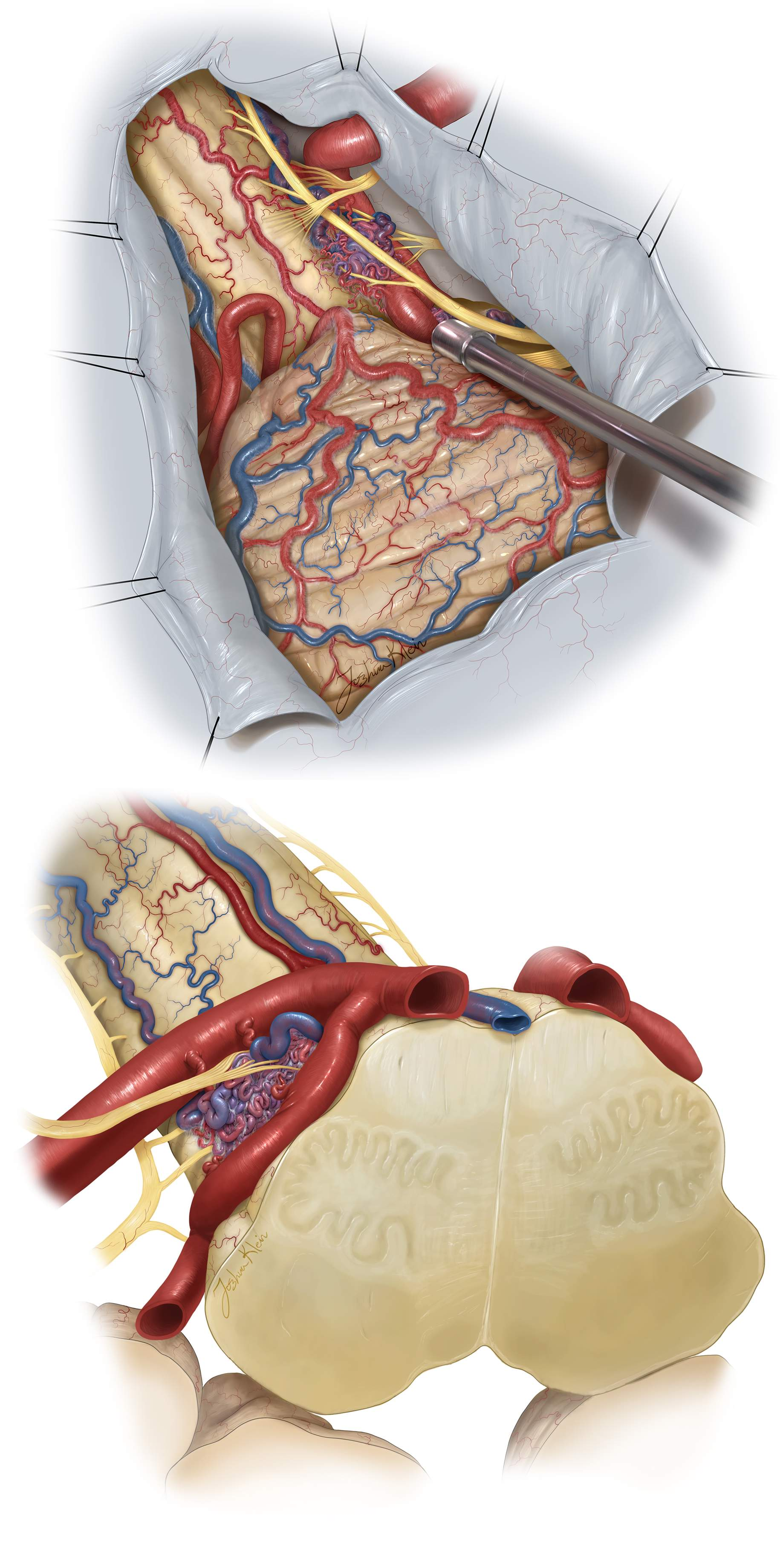 Figure 16: A lateral suboccipital or its far lateral variant are reasonable choices for exposure of the lesion (top photo.) I have transected 1-2 spinal accessory nerve contributions to the XI without any consequence and this maneuver is an option and often mandatory in these AVMs. These AVMs are purely epipial and amenable to resection without pial invasion. Skeletonization of the vetebral artery and vital  en passage  perforating arteries are paramount (top). You can further appreciate the relationship to the PICA and vertebral artery in the bottom image.