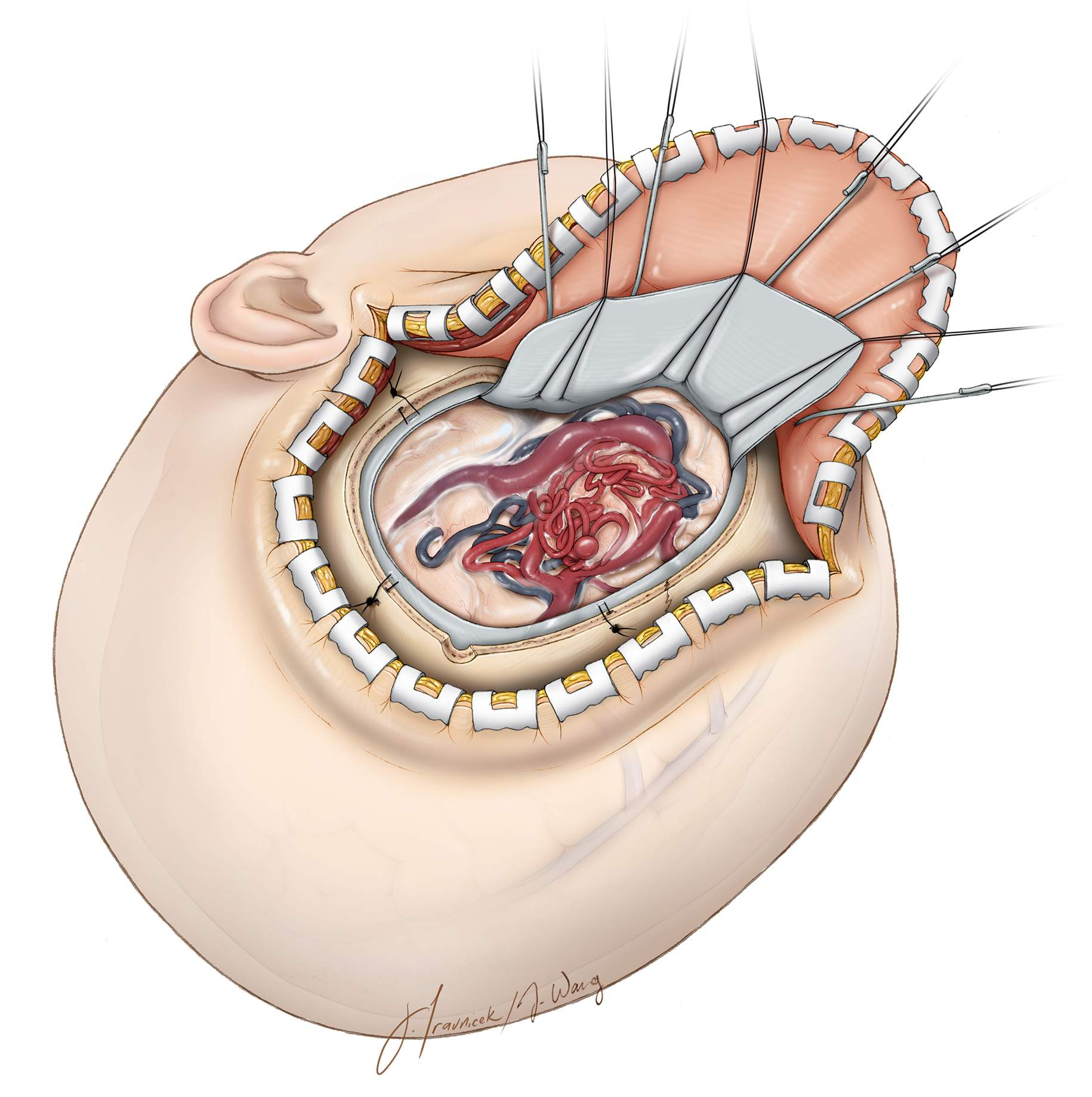 Figure 2: Following the craniotomy, a wide durotomy unveils the brain while protecting the underlying vessels. The dura is opened slowly and meticulously because scarring from previous hemorrhage(s) may cause it to be adherent to the underlying AVM or an associated vessel. Tearing of a draining vein this early in the operation can be disastrous because of heavy bleeding and the likelihood of occluding the draining vein while attempting to control the hemorrhage.